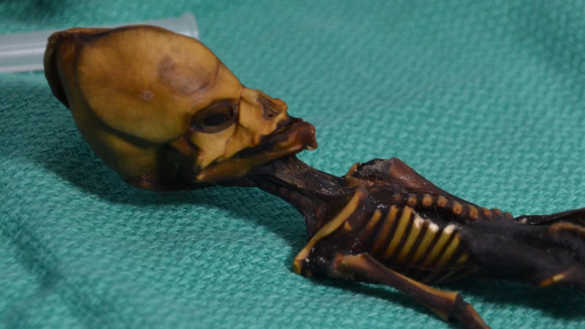 A mummified specimen from Chile's Atacama region fueled speculation for a decade about its peculiar skull. Credit: Bhattacharya S et al. 2018
