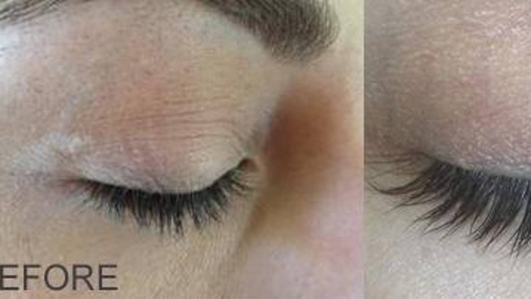 Will You Get Longer Darker Lashes With Latisse Fox News