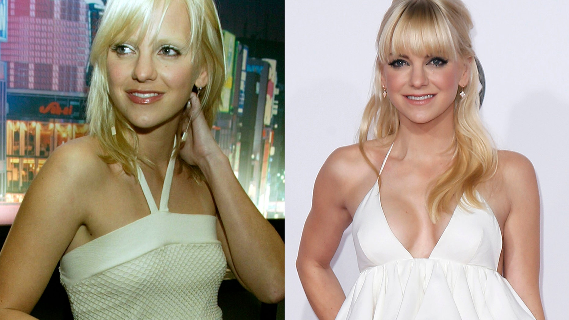 Anna Faris in 2004 (left) before she had breast implants and after in 2015 (right).