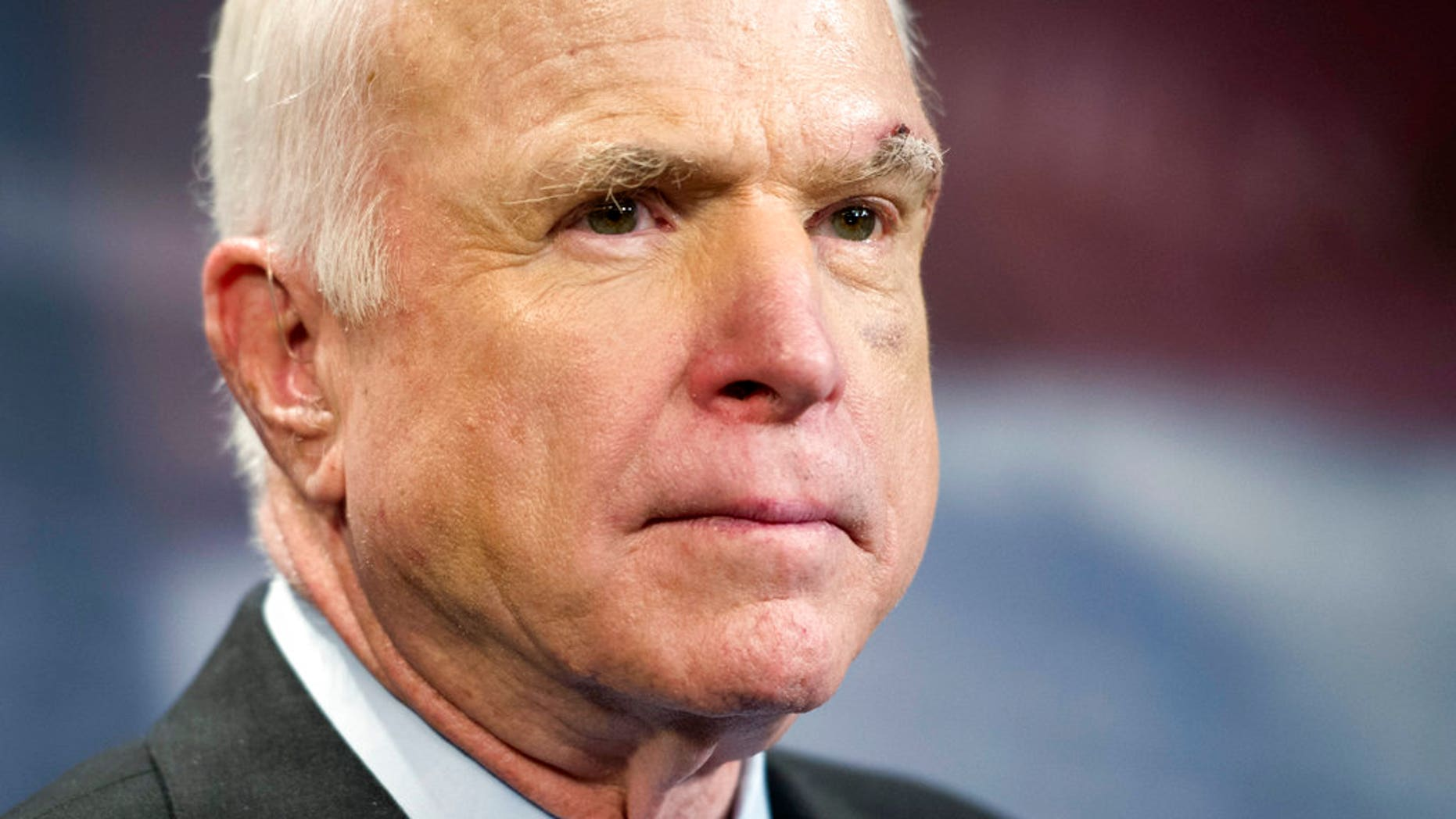 Sen. John McCain was hospitalized over the weekend for a tear in his Achilles tendon, his office said in a statement on Monday.