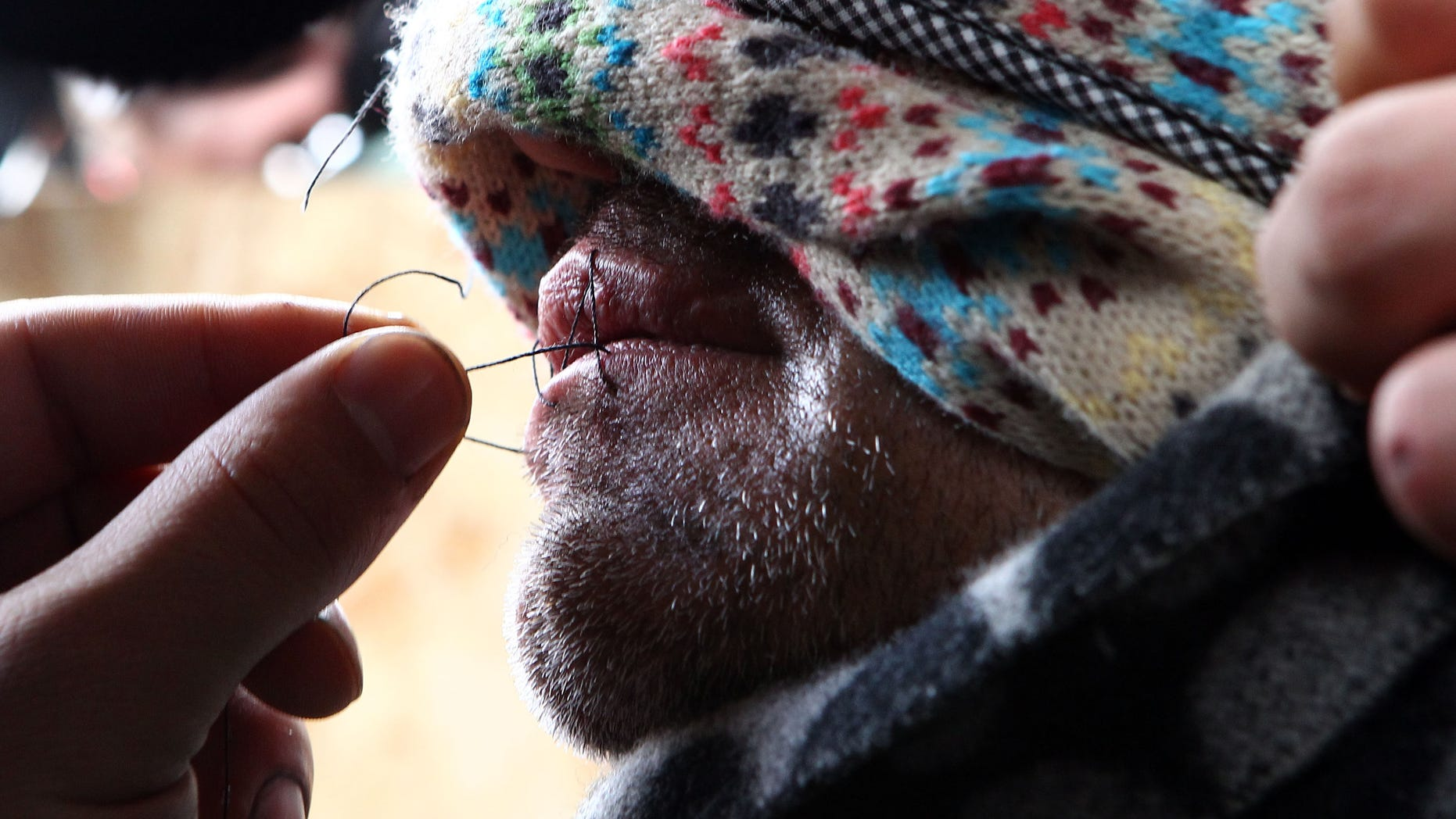 A hooded unidentified migrant from Iran has his lips sewn, prior to a demonstration in an attempt to prevent the dismantling of makeshift dwellings at a camp near Calais, France, Thursday March 3, 2016.  (AP Photo/Michel Spingler)