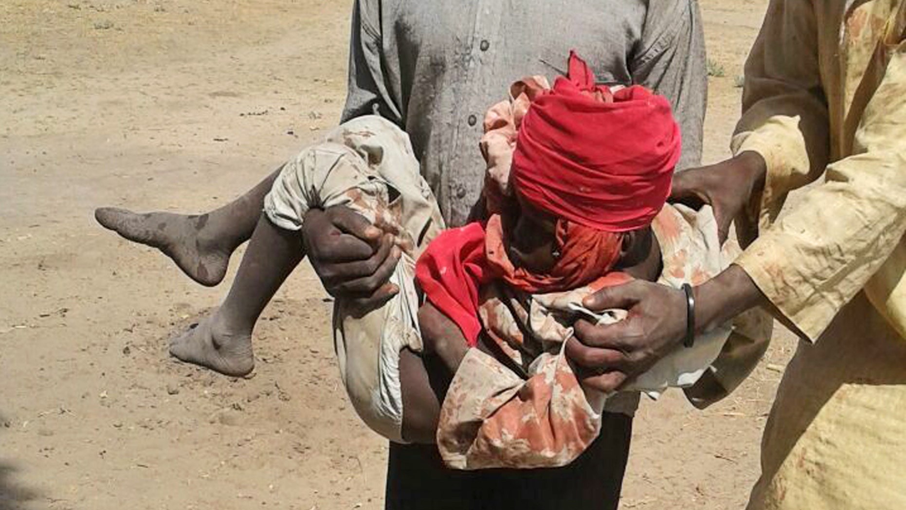 A man carries an injured child after the airstrike.