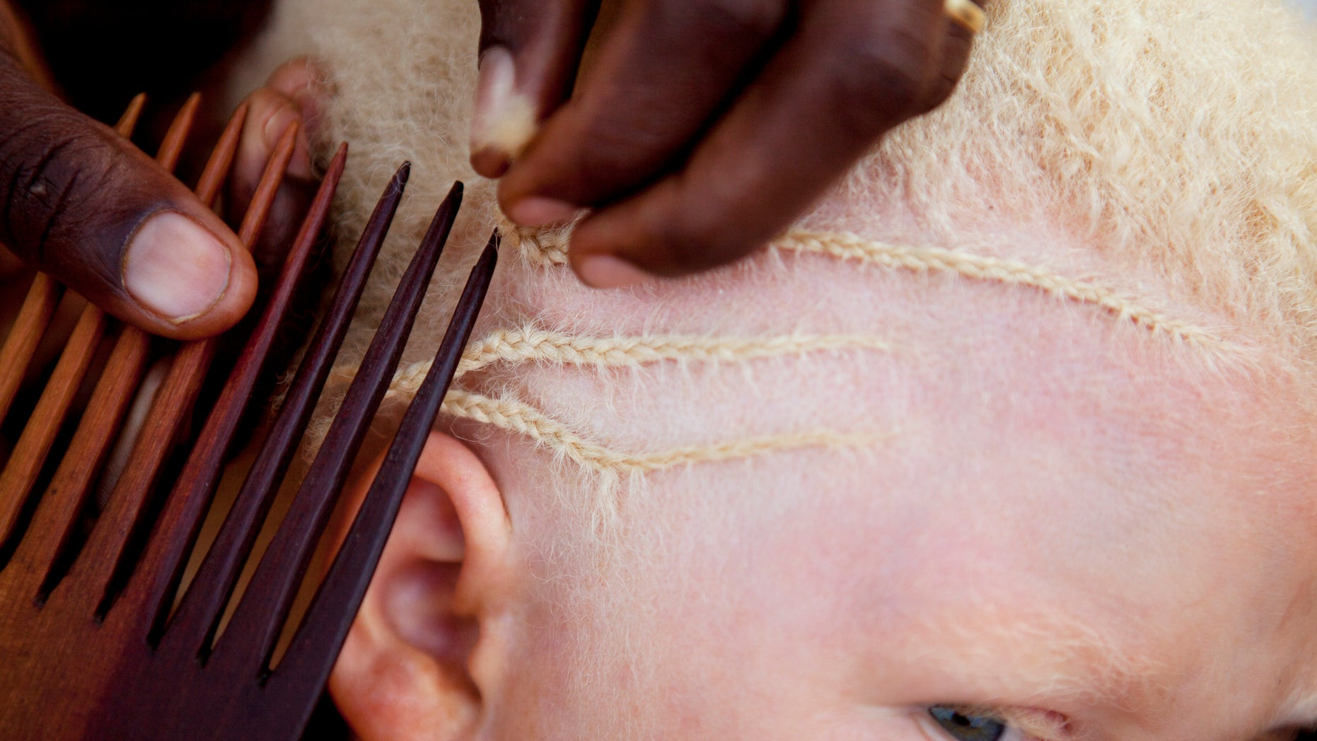 A young girl getting her hair braided at a facility acting as a safe haven for children with albinism in Tanzania.