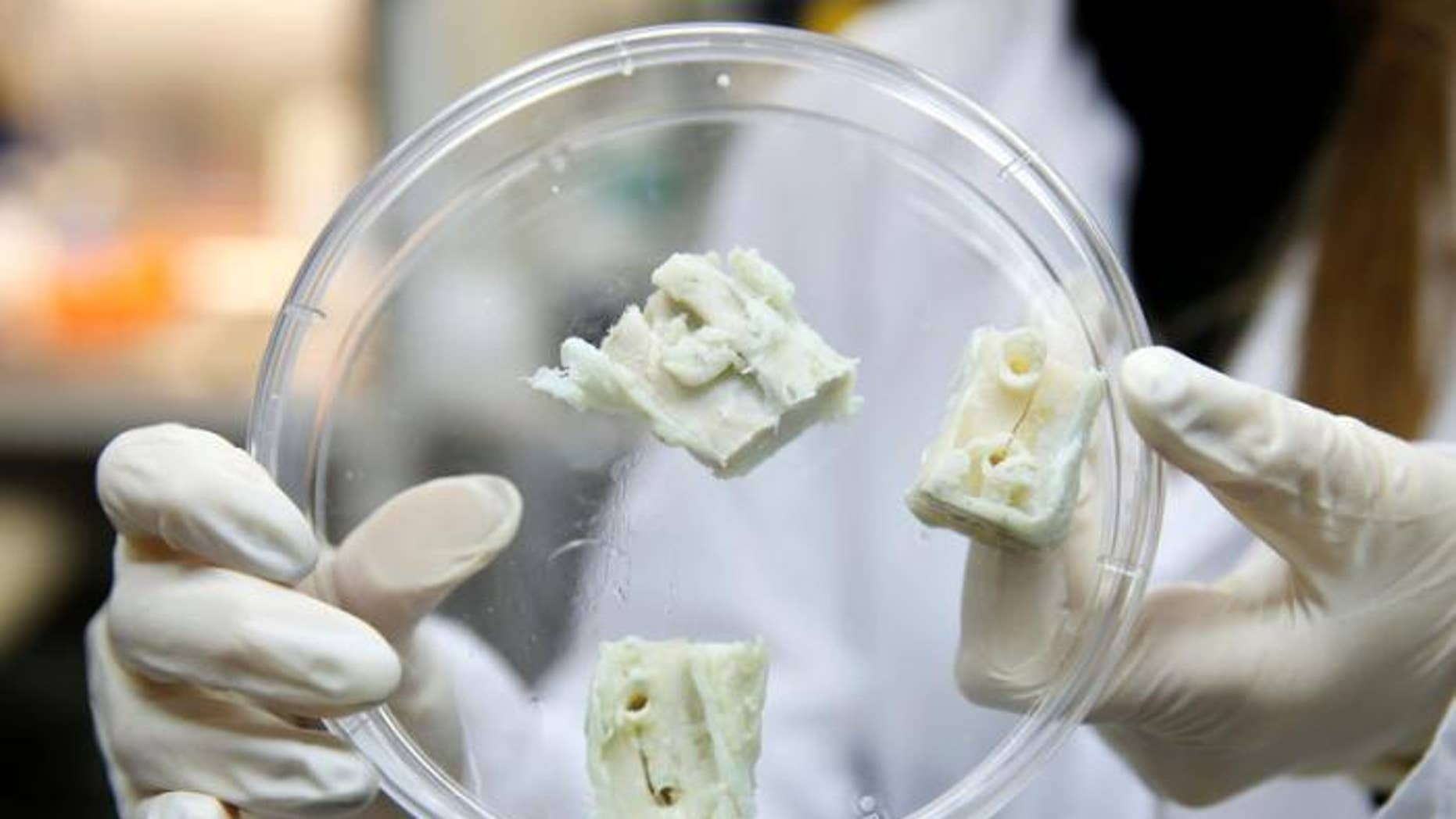 Dec. 4, 2016: A researcher displays parts of a lab-grown, semi-liquid bone graft at the laboratory of Israeli biotech firm Bonus Biogroup in Haifa, Israel.