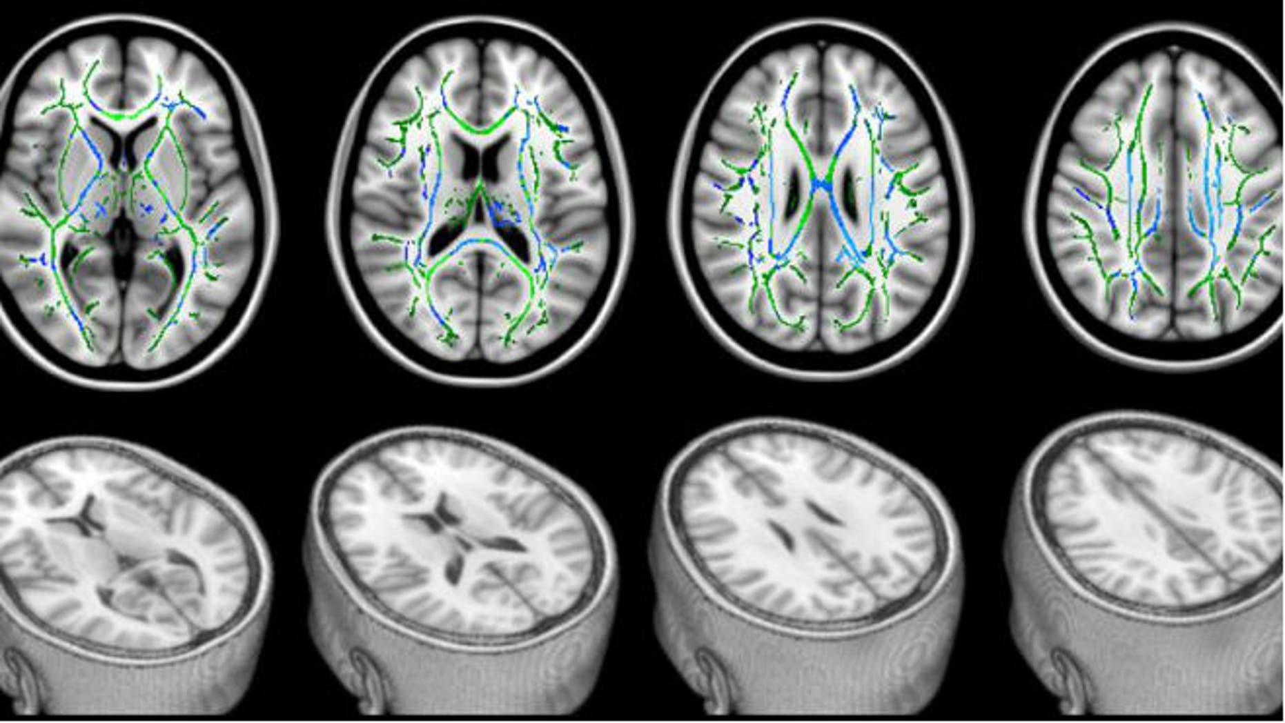 "In these DTI scans, the bottom row shows views of a head with the top sliced away to reveal the brain. The top row shows the corresponding top views of the brain. The green lines represent the white matter— the brain's ""wiring."" The blue areas are the damaged parts of the white matter that seem to be responsible for cognitive problems experienced by study patients with mild traumatic brain injury. (Professor Blamire/Newcastle University, UK)"