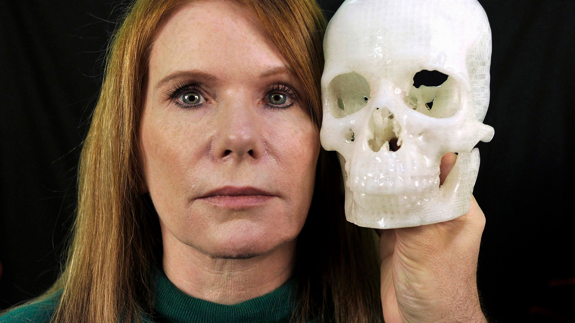 In this photo taken Jan. 13, 2015, Pamela Shavaun Scott holds a 3D printer model of her skull after her brain tumor was removed from behind her eye, in Morro Bay, Calif. (AP Photo/Phil Klein)