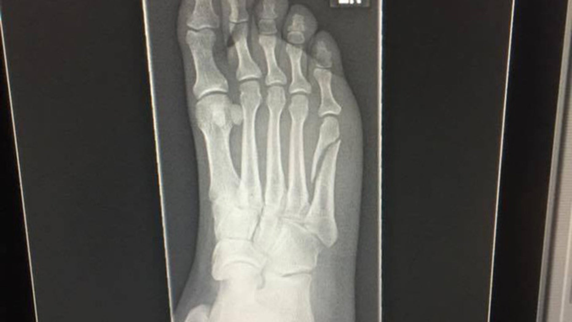 Diana Vadala said she broke her foot while celebrating the Patriots win.