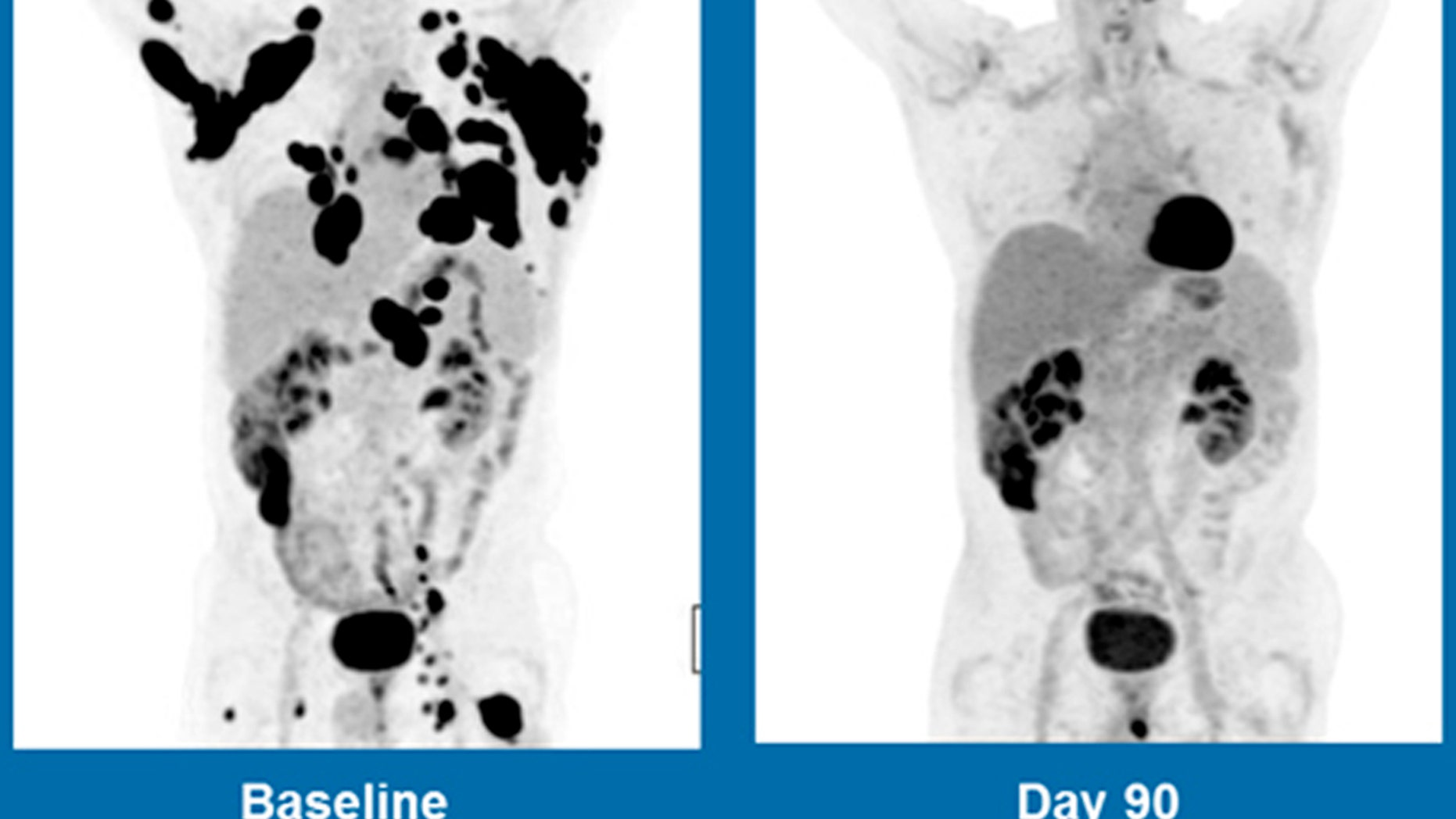 These scans show a 62-year-old man with non-Hodgkin lymphoma, at left in Dec. 2015, and three months after treatment with Kite Pharma's experimental gene therapy.
