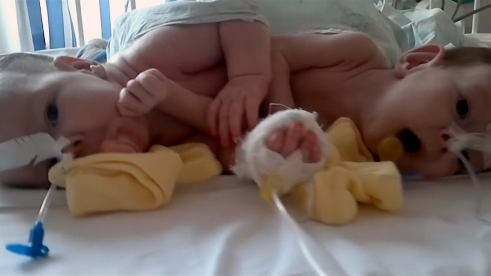 Doctors say they have successfully separated conjoined twins after a 10 hour operation by a team of 20 surgeons.