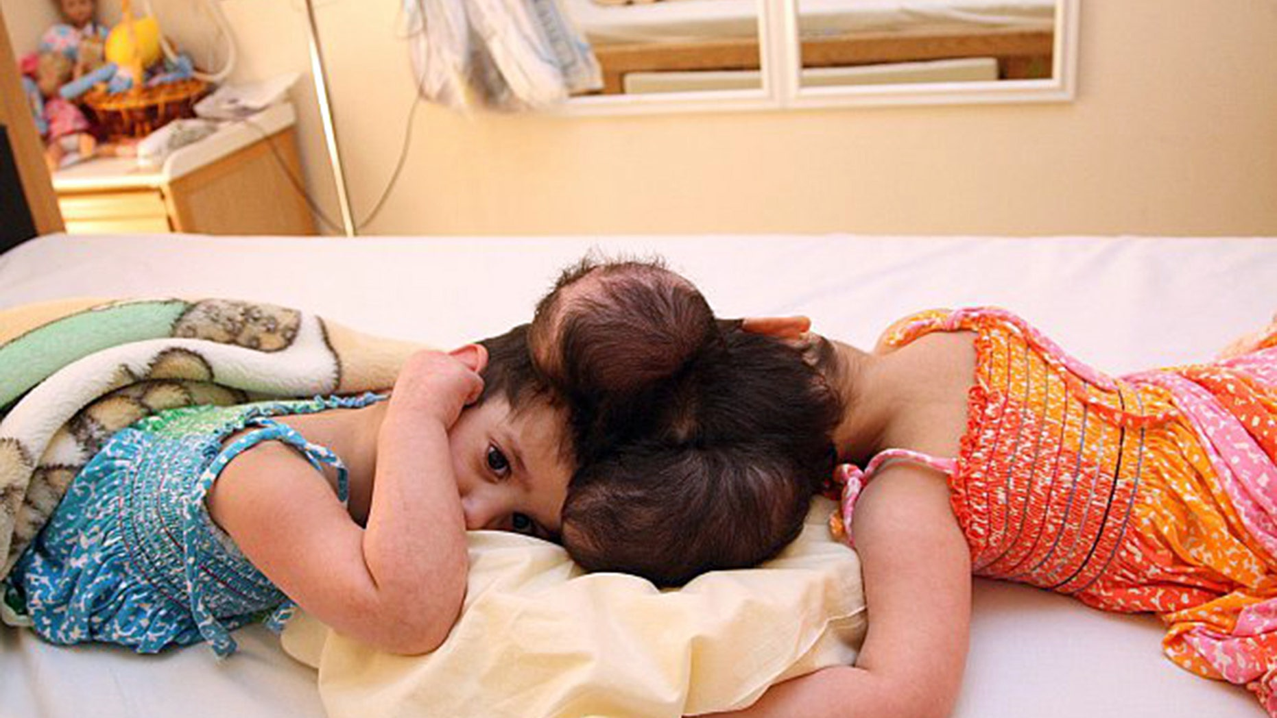 Tuqa and Yakeen are said to be doing well after a 10-hour surgery to separate them.