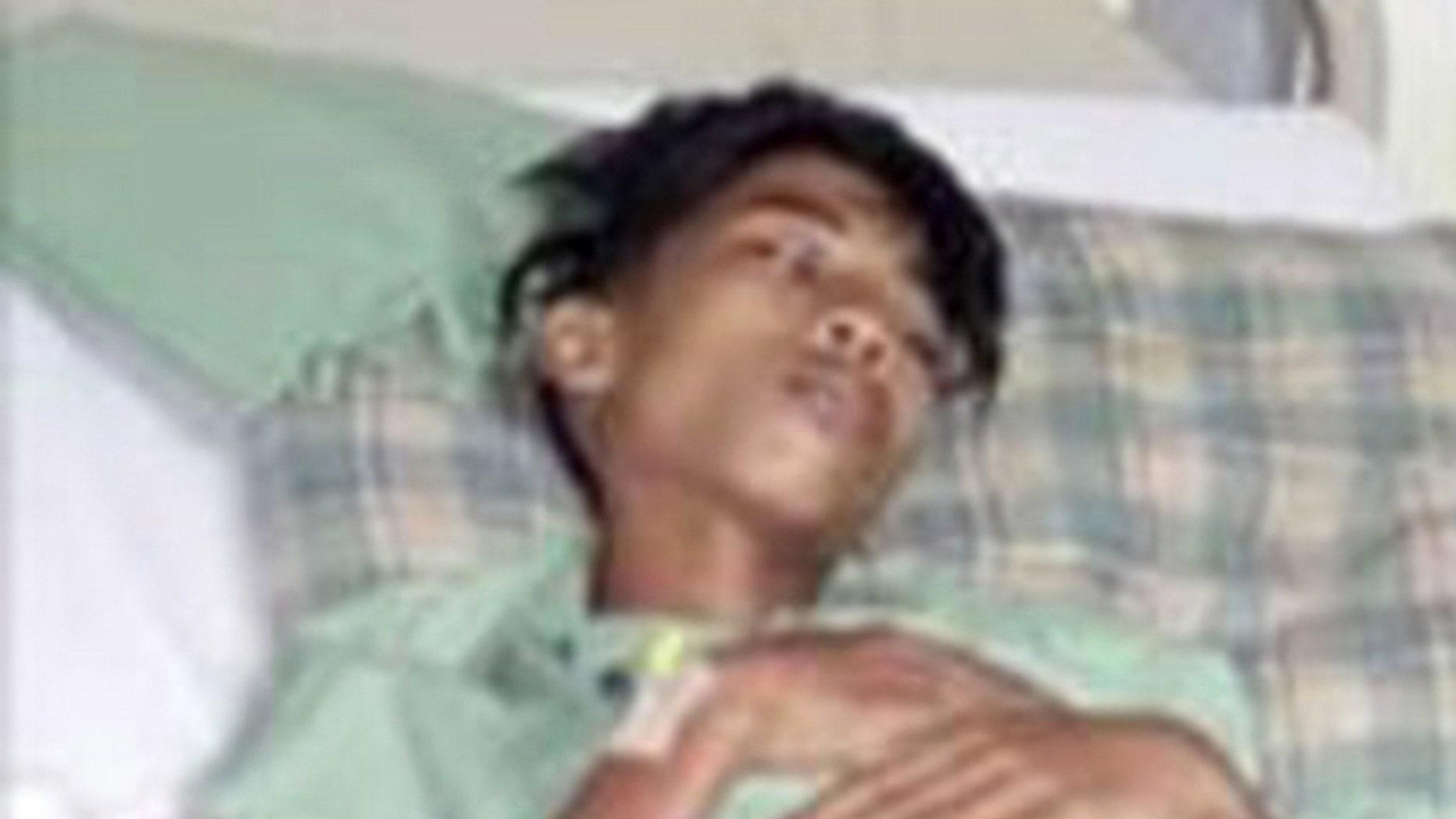 Mohd Zul Shahril Saidin, who carried his unborn twin's fetus since birth.