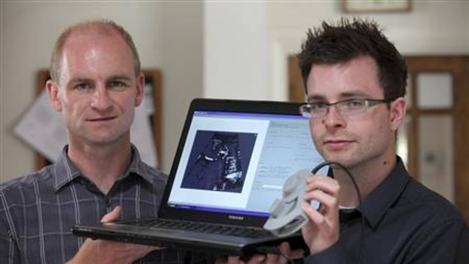 Jeff Neasham (L) and Dave Graham hold their low-cost ultrasound system in Newcastle on September 6, 2012. REUTERS/Newcastle University/Handout