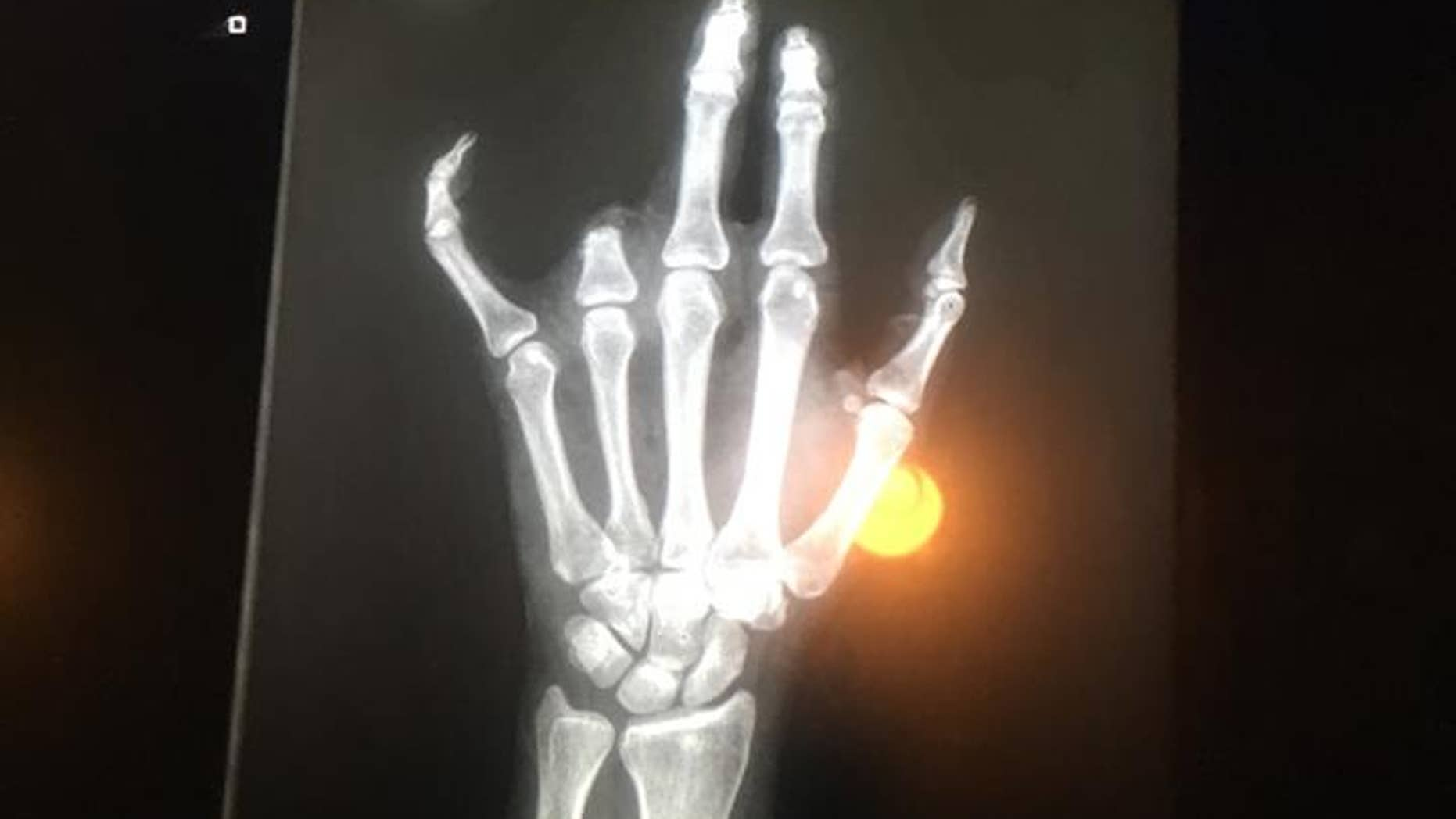 This mom lost her finger after it got caught on a fence at her son's T-ball practice.