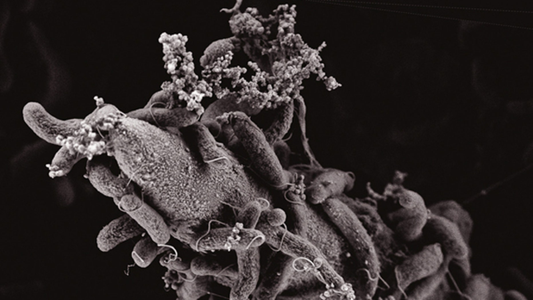 This electron scanning microscopy image show Vibrio cholerae bacteria attached to a chitin surface.