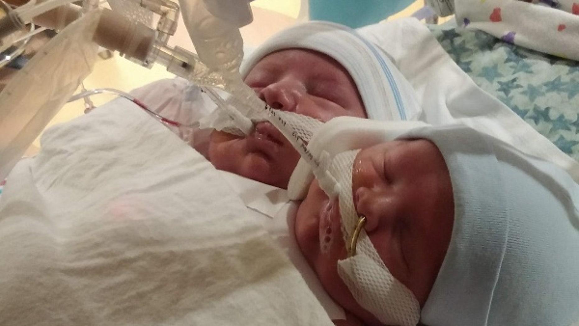 The Kroeger twins were born on Sept. 5 at Cincinnati Children's Hospital