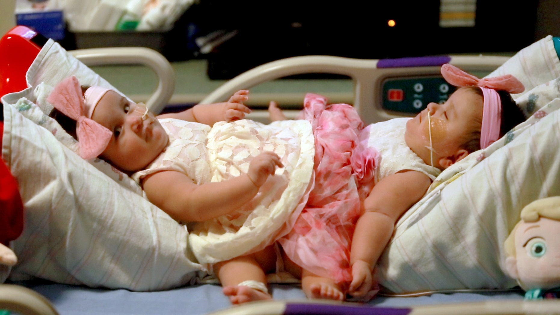 Feb. 10, 2016: This photo provided by Driscoll Children's Hospital shows conjoined twin sisters Scarlett, left, and Ximena Hernandez-Torres at Dirscoll Children's Hospital in Corpus Christi, Texas.