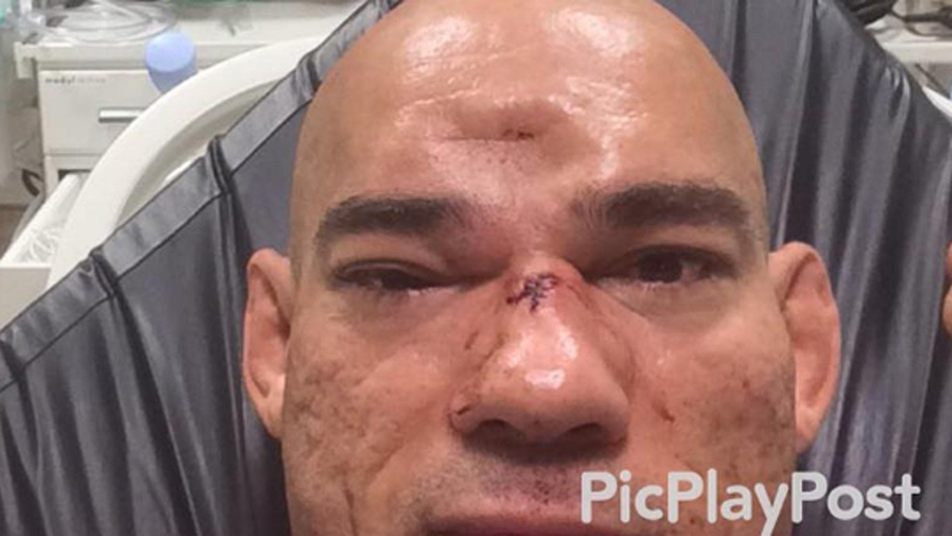 "Evangelista ""Cyborg"" Santos suffered a skull fracture in last week's bout."