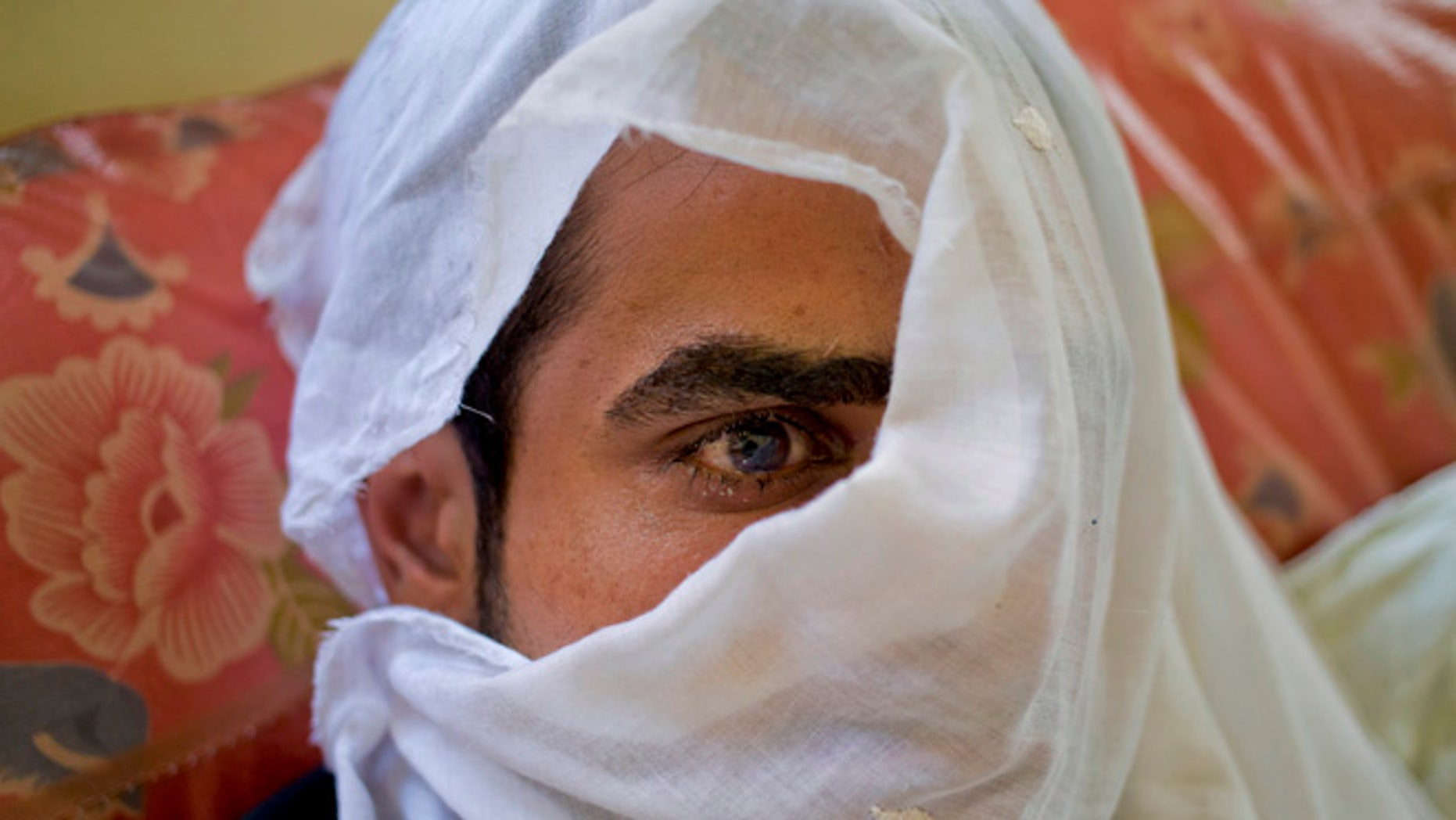 JULY 13: Huzaif Nazir, whose eye was damaged after Indian government forces fired pellets at him during a protest covers his face with a white cloth to hide his identity as he rests on a hospital bed in Srinagar, Indian controlled Kashmir.
