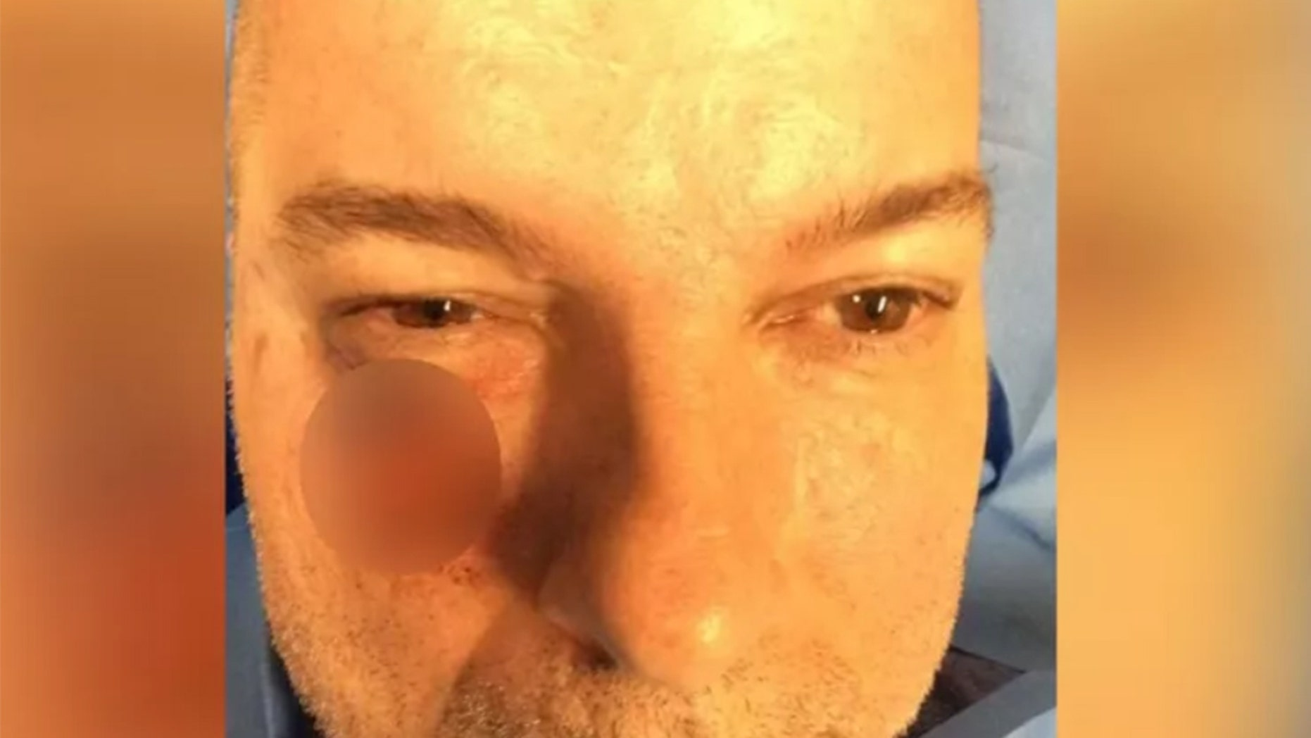 Shawn Montgomery visited the dermatologist after his dentist spotted discoloration on his face.
