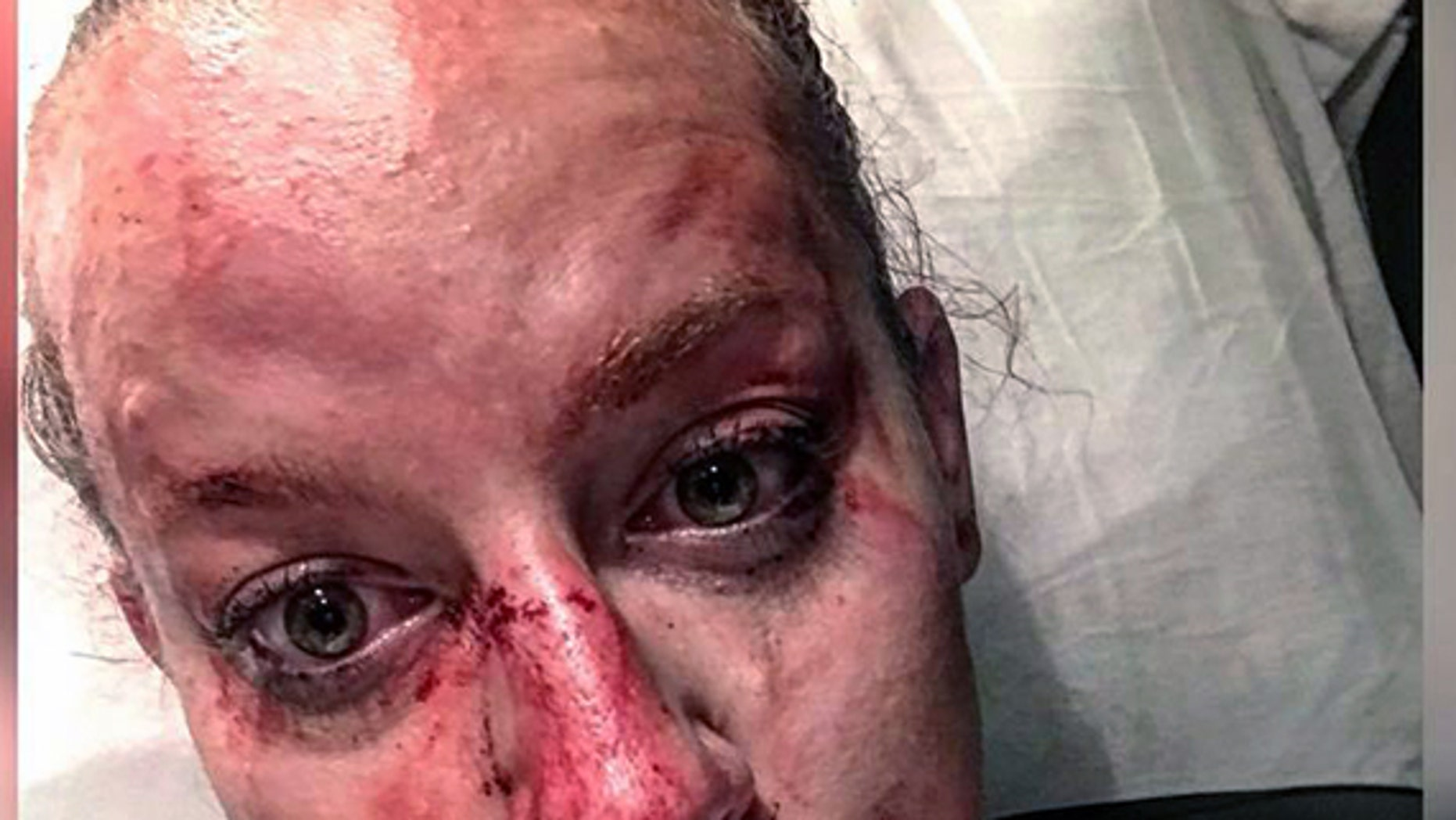 Brooke County (W.Va.) Sheriff's Deputy Kristen Richmond posted this photo of her injuries after a fight with a suspect early Friday.