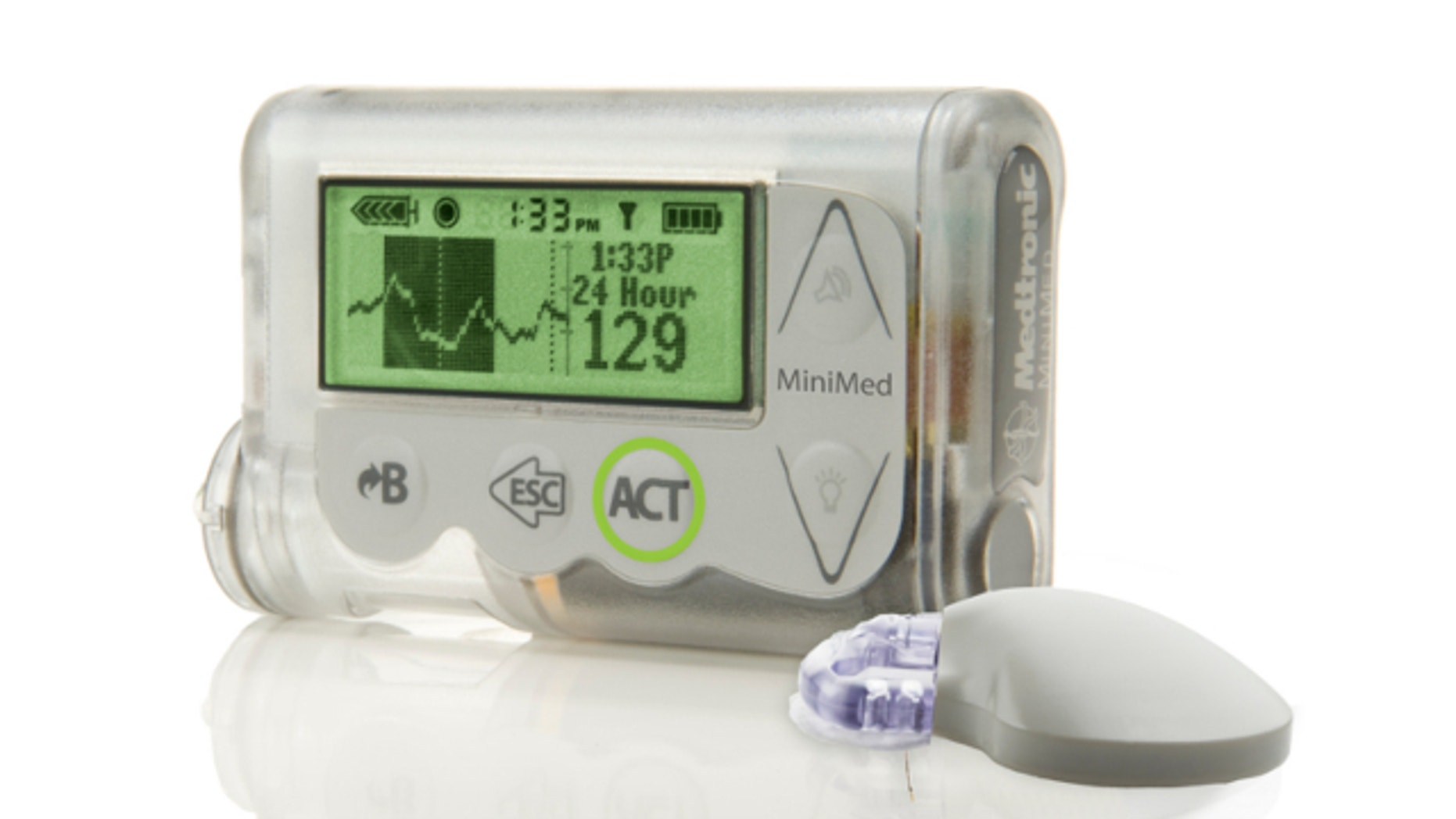 """October 2012: This image provided by Medtronic shows the MiniMed Integrated System device, which doctors are reporting as a major step toward an """"artificial pancreas."""""""