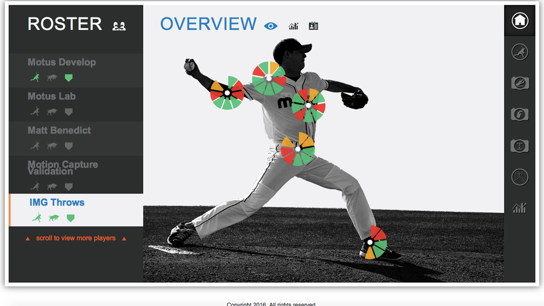 This graphic provided by Motus Global shows how it's MotusPro system uses five blue sensors to record 39 sets of measurements ranging from shoulder rotation to hip speed to stride. Programmers already have revolutionized the game with defensive shifts. Now they hope for a new level of diamond data that will stop the spate of torn ulnar collateral ligaments in elbows and an epidemic of Tommy John surgeries. (Motus Global via AP)