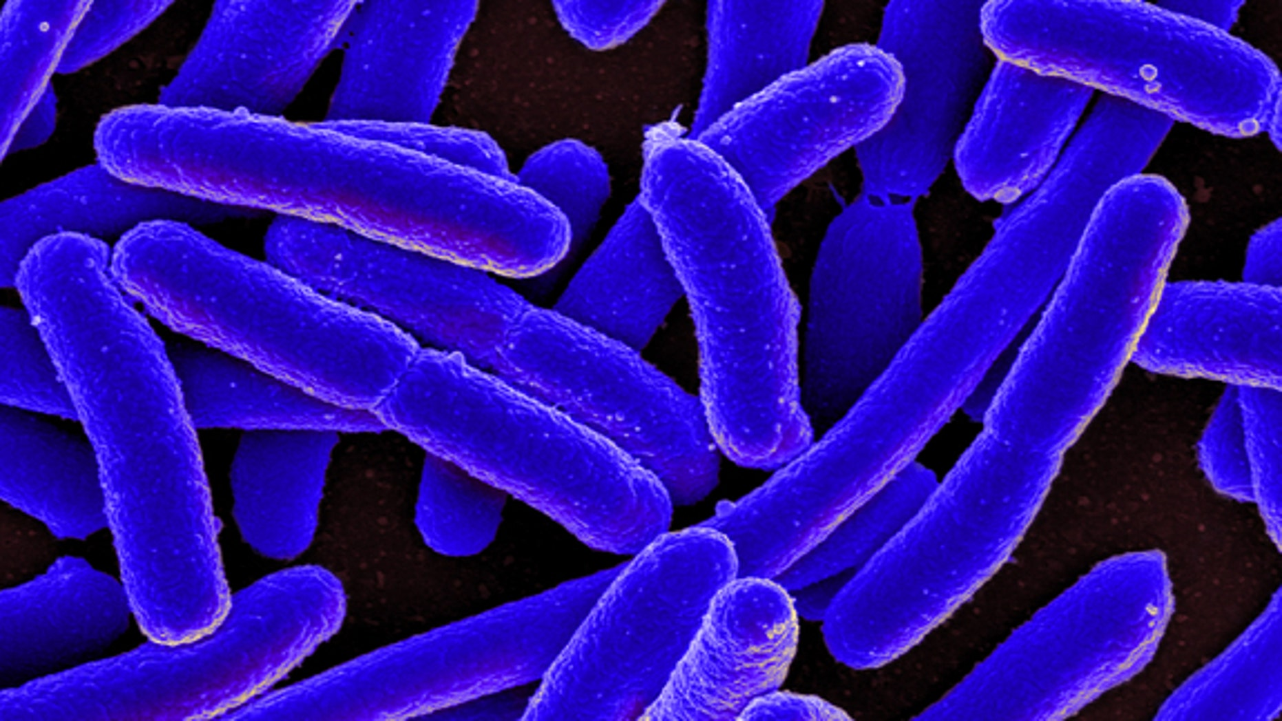 Colorized scanning electron micrograph of Escherichia coli bacteria, grown in culture and adhered to a cover slip.