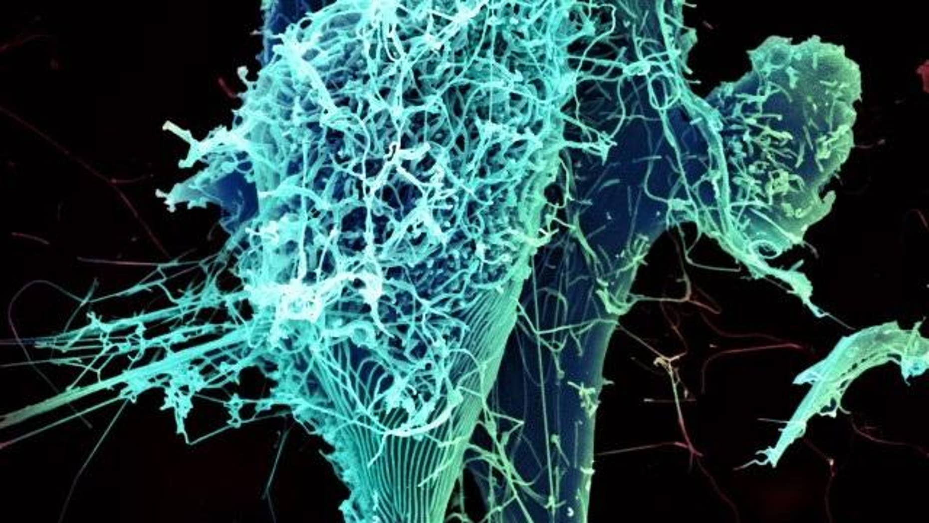 String-like Ebola virus particles are shedding from an infected cell in this electron micrograph.