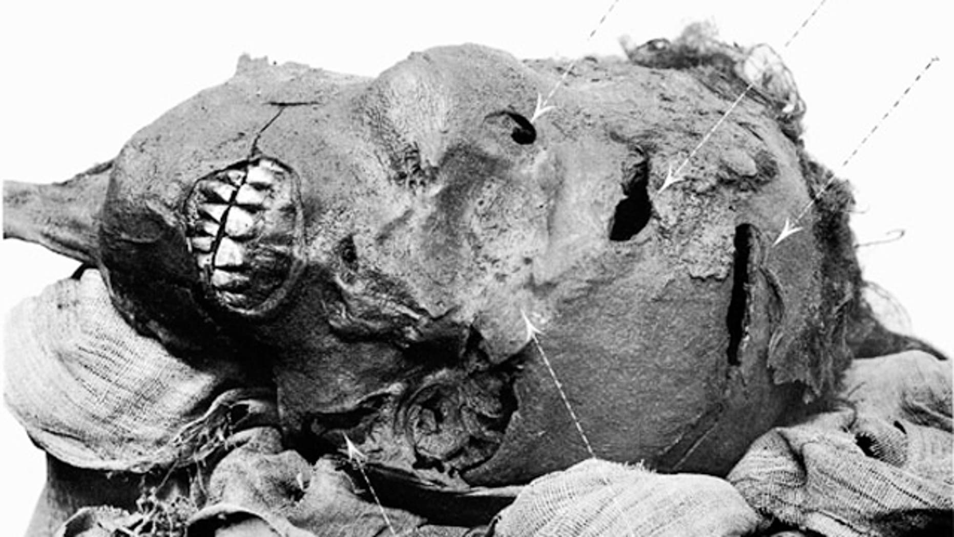 Pharaoh Seqenenre Tao II died from multiple ax wounds. He may have been killed in battle, executed afterwards, or possibly assasinated. A long dagger believed to belong to his son Kamose has evidence of wear and tear, suggesting that he used it to avenge his father's death.