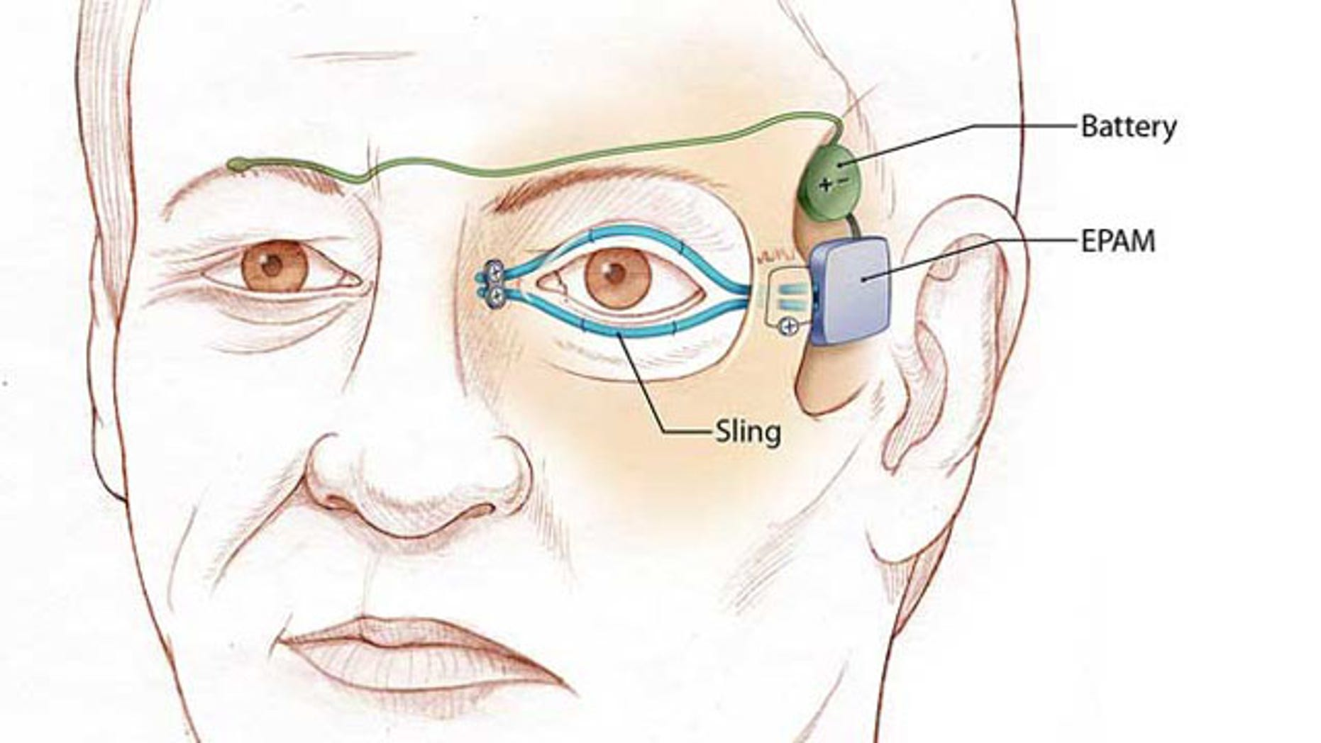 """Illustration of left eyelid """"sling"""" that is attached to an artificial muscle. The power supply and artificial muscle are implanted in the temple. When the normal right eyelid blinks, the electrical sensor (green) sends a signal to the battery to activate the artificial muscle."""