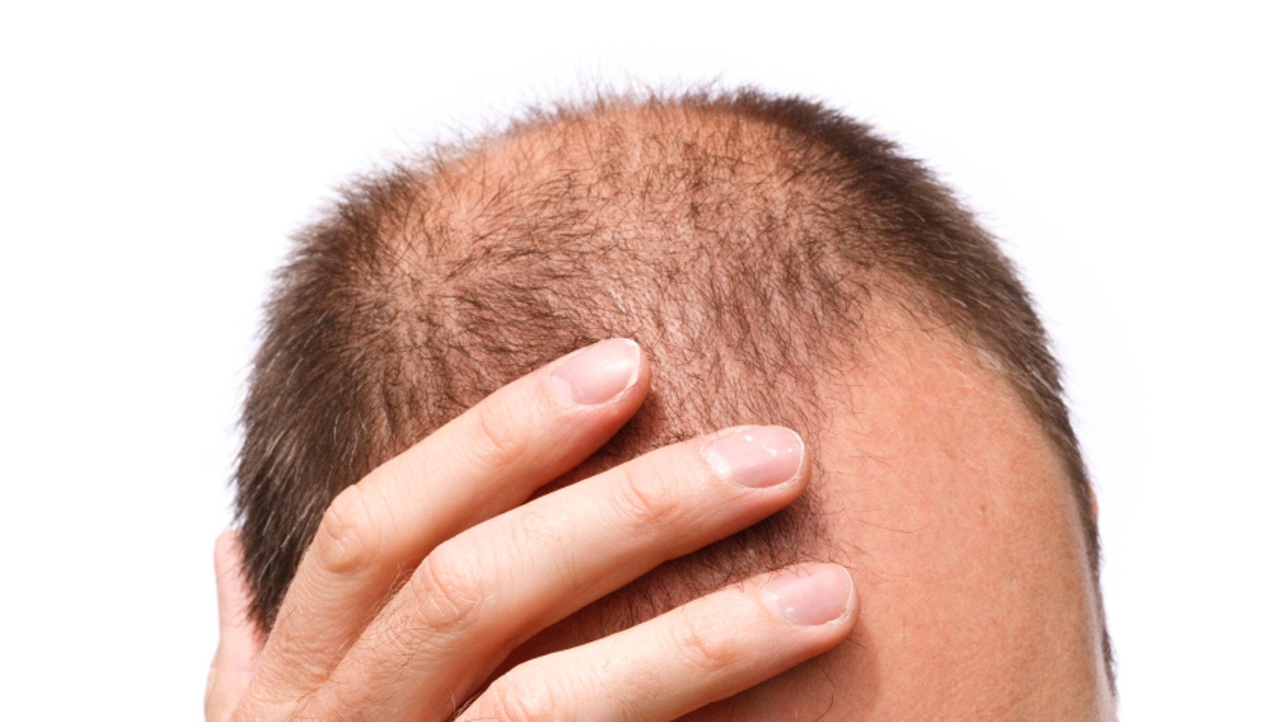 Foods that prevent hair loss in men