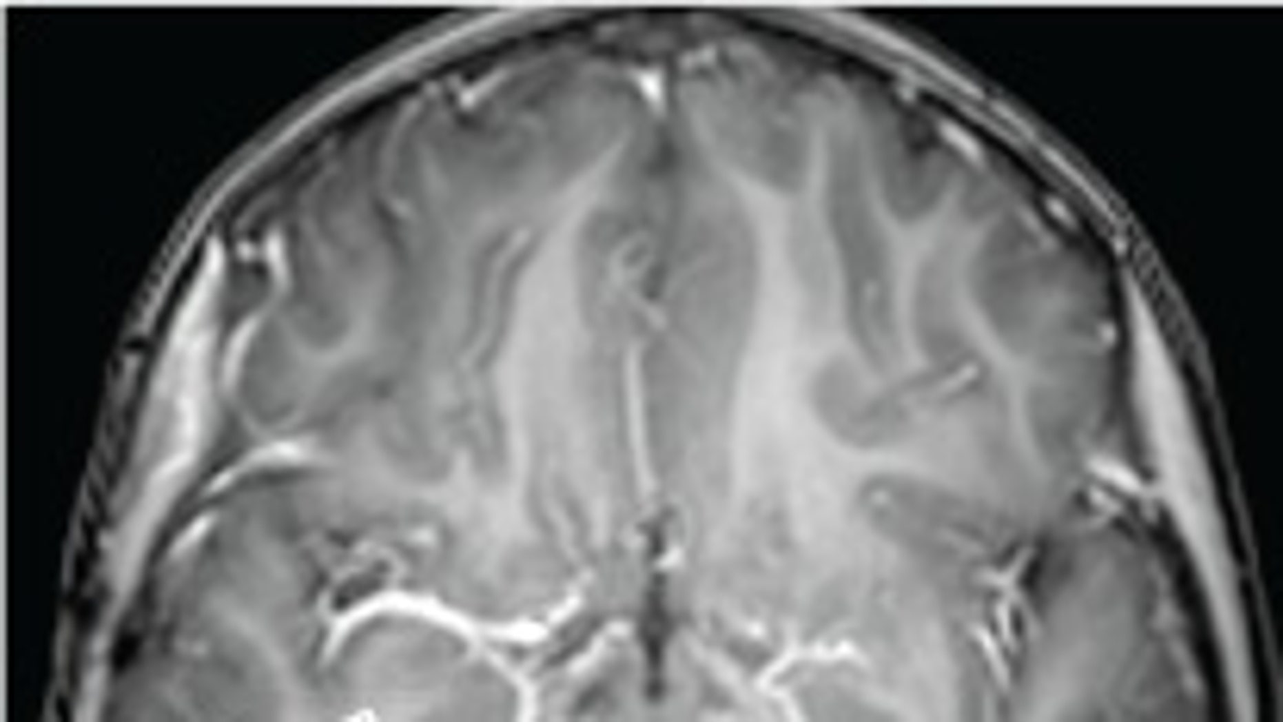 A brain tumor from a young girl with uncontrollable laughter is shown in this MRI scan.