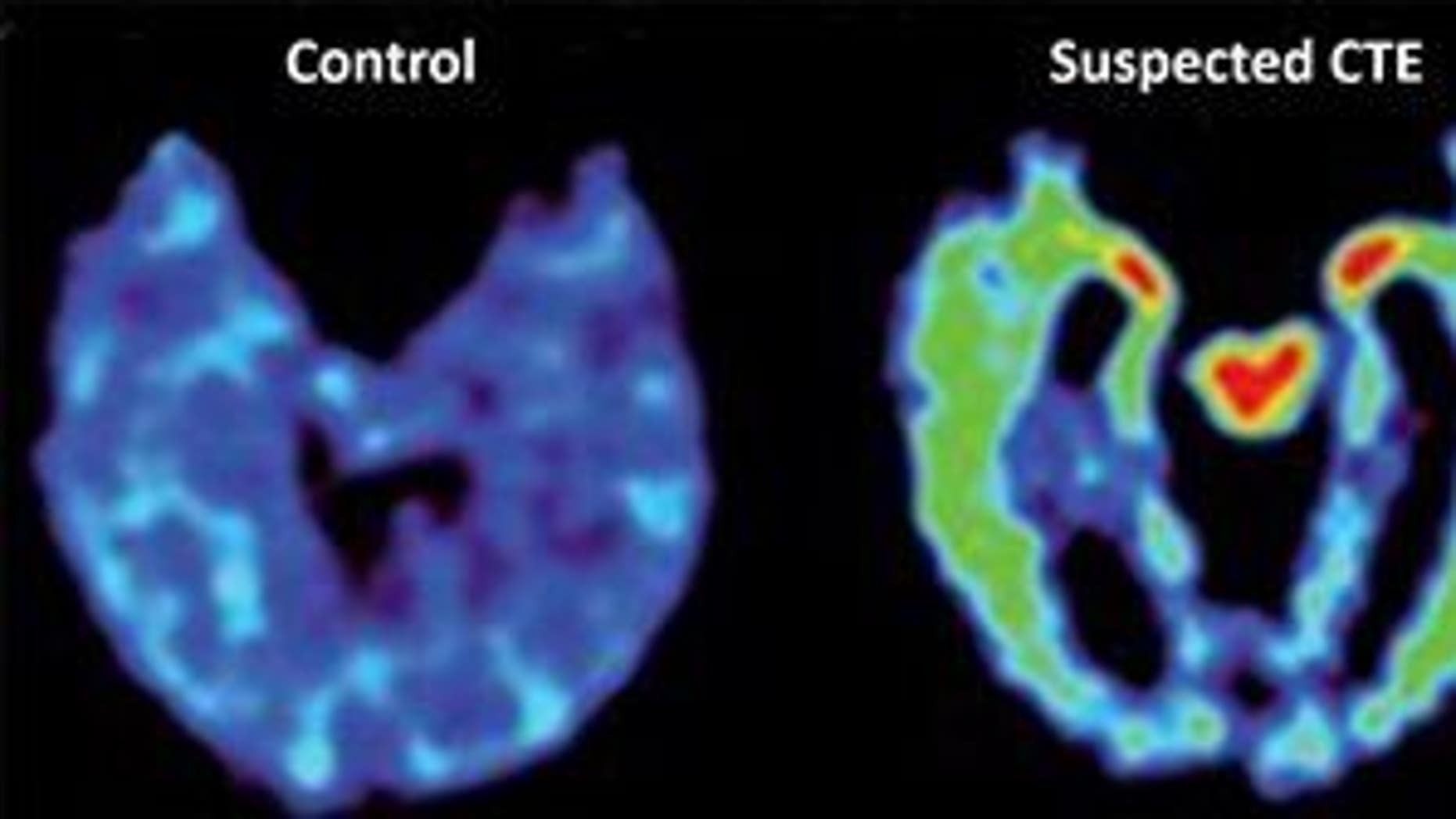 Scans of a normal brain, a brain with suspected CTE, and a brain affected by Alzheimer's.