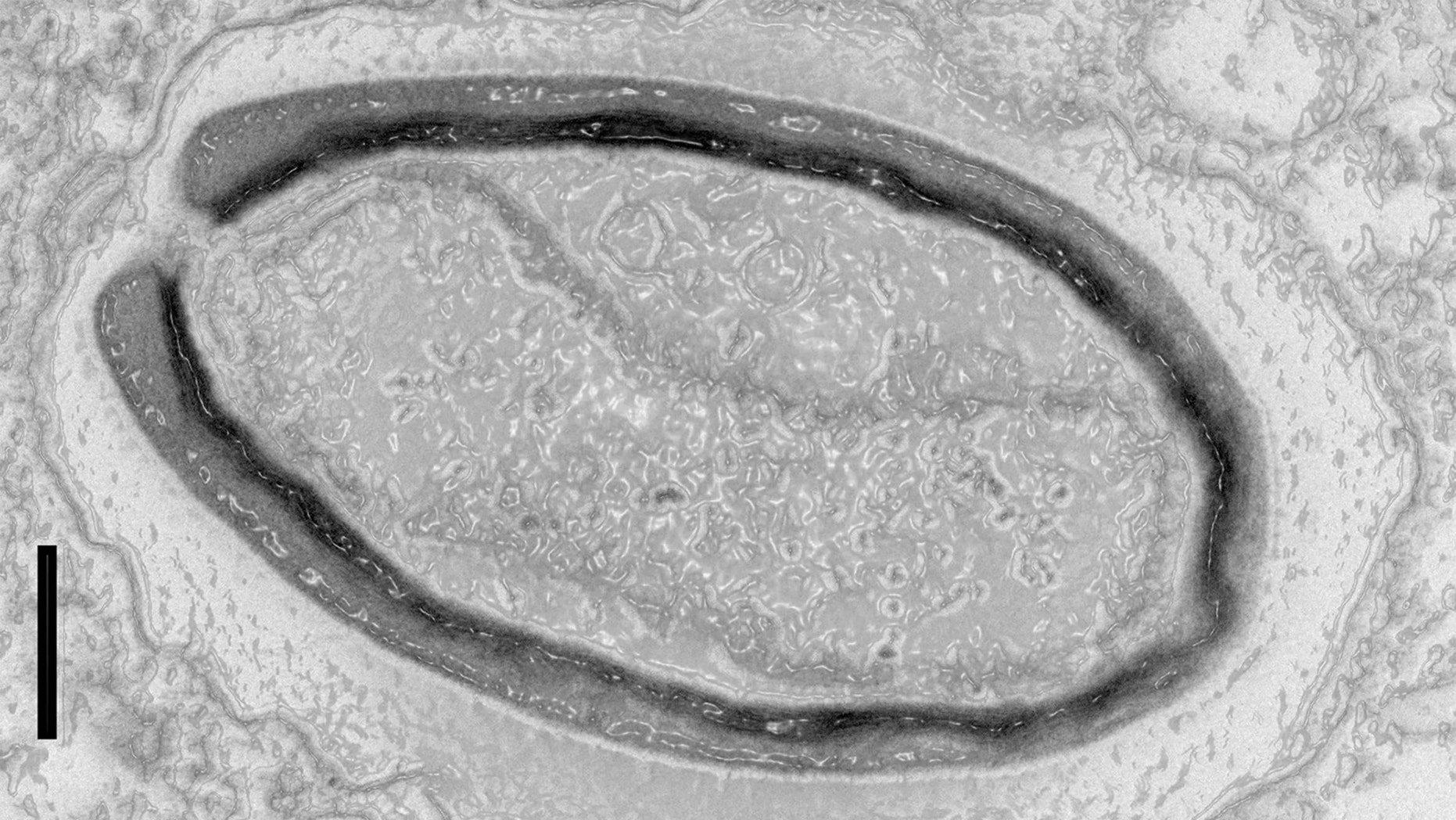 Pandoravirus quercus, as viewed through an electron microscope. The scale bar equals 100 nanometers. Credit: Copyright IGS-CNRS/AMU