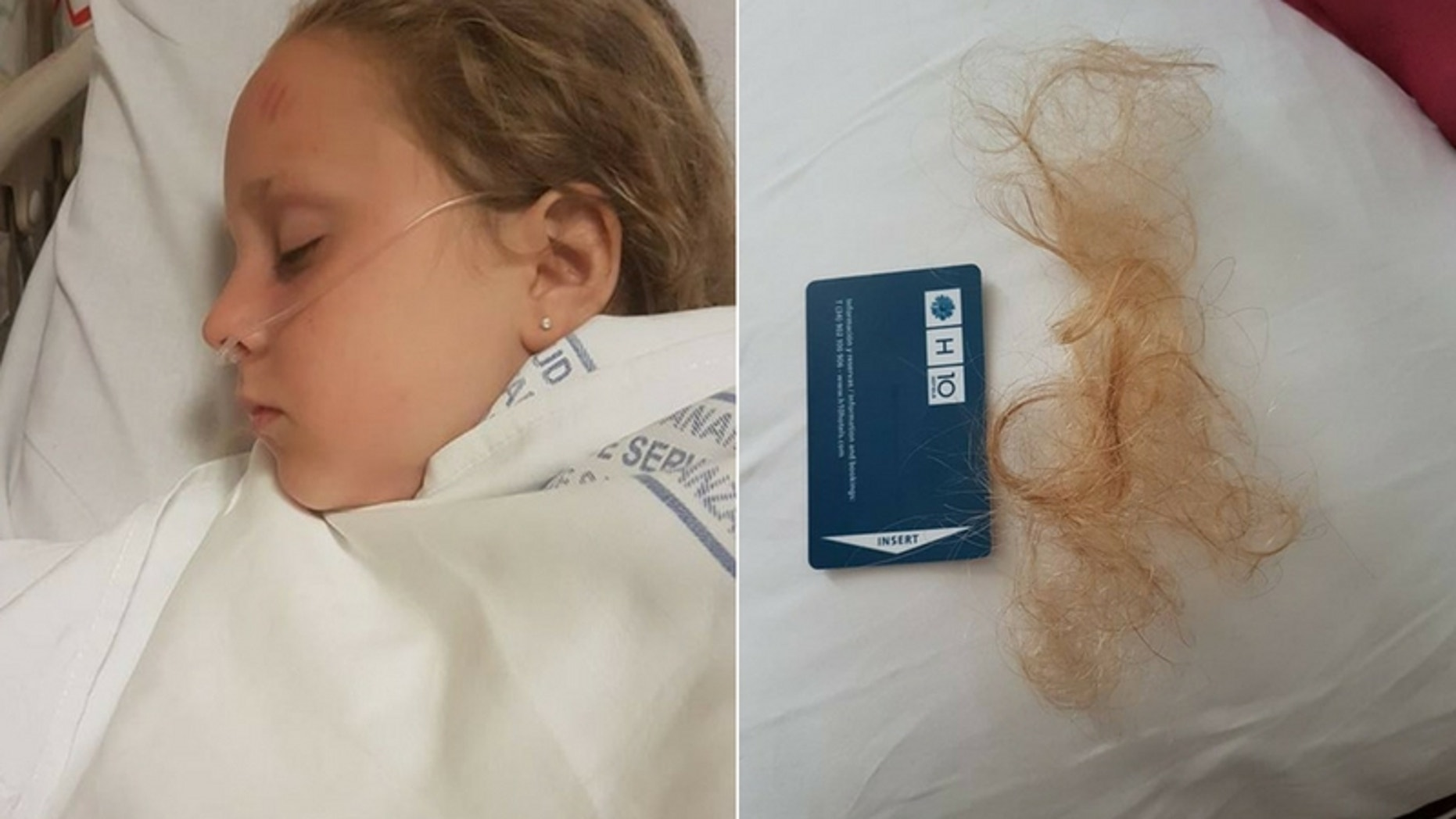 The Morgan family were vacationing in Lanzarote when the pool filter sucked the girl's hair in underwater. (Alex Morgan/Facebook)