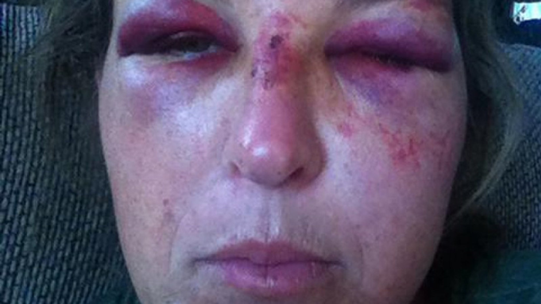 Martha McClure was injured when she was allegedly hit in the face with a shovel.