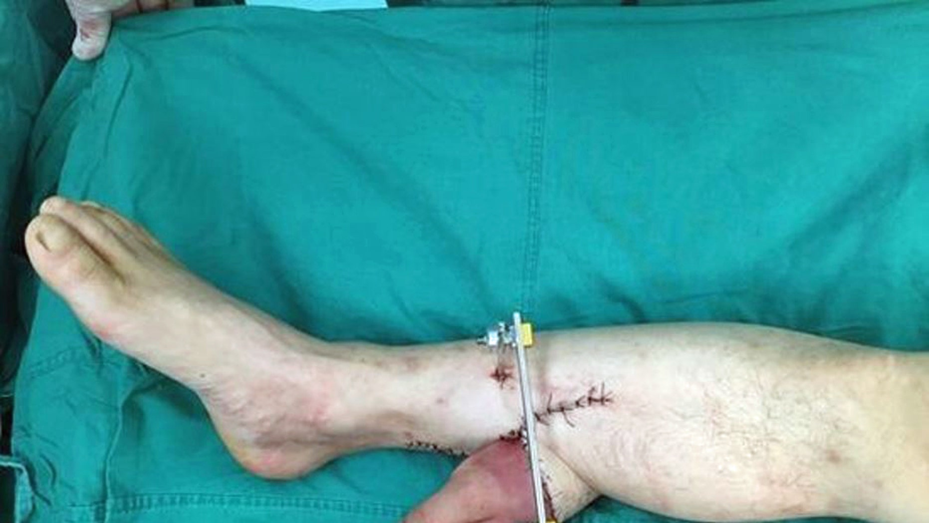 Doctors performed an extraordinary operation to save a mans severed hand by attaching it to his leg.