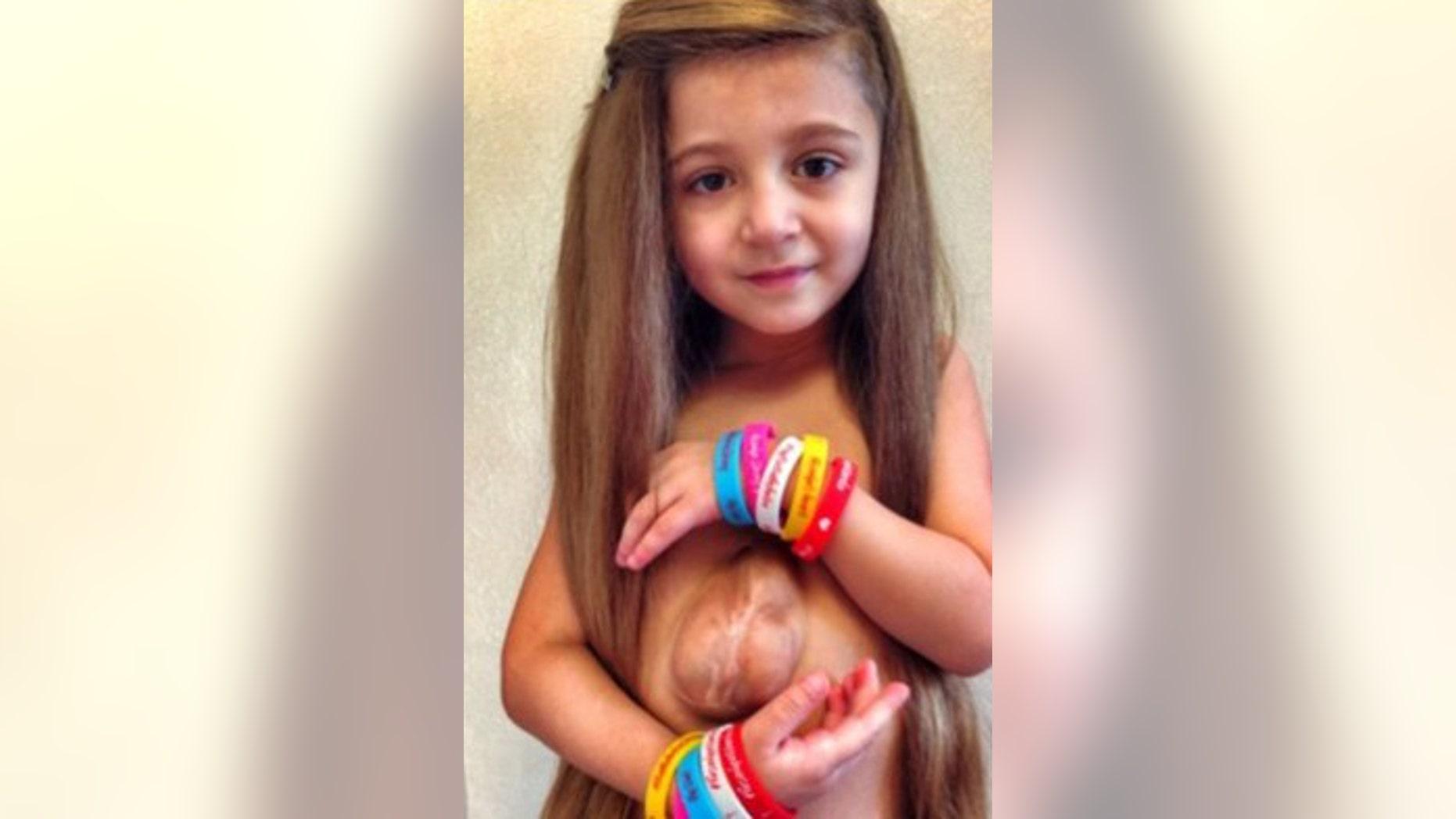 """Virsaviya """"Bathsheba"""" Borun is a 6 and a half year old girl who have a rare condition called Pantalogy of Cantrell."""