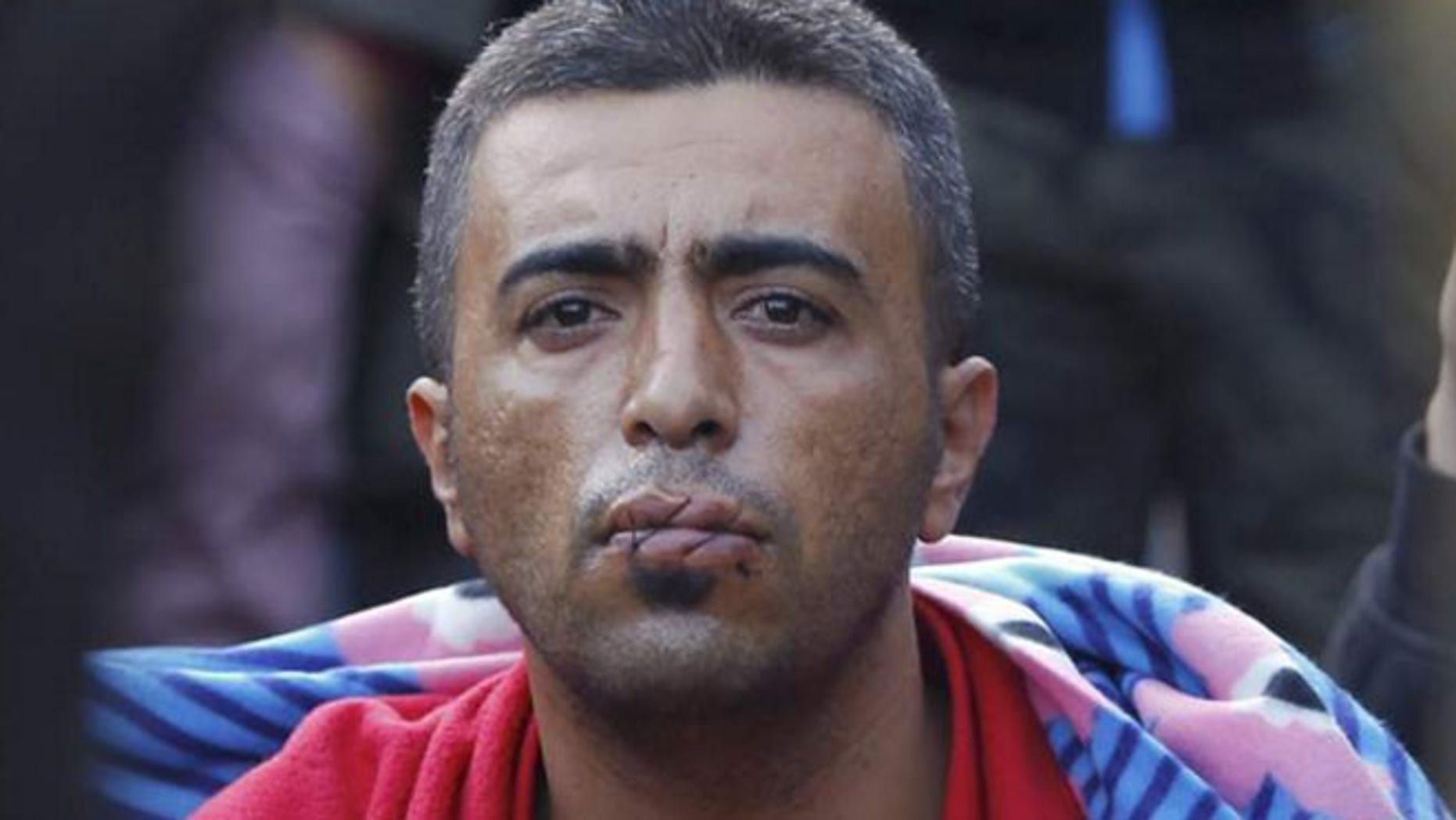 Several refugees have sewn their lips together with a cord.