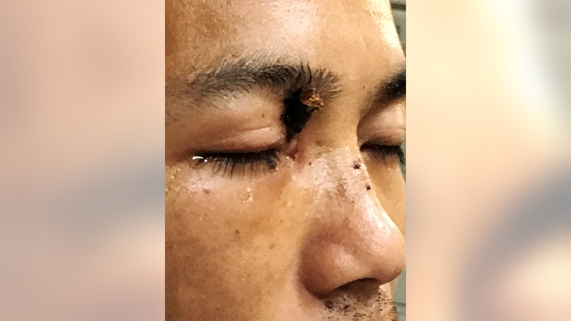 Doctors in China have pulled a 7-inch tree branch from Wu Xuan's injured right eye.