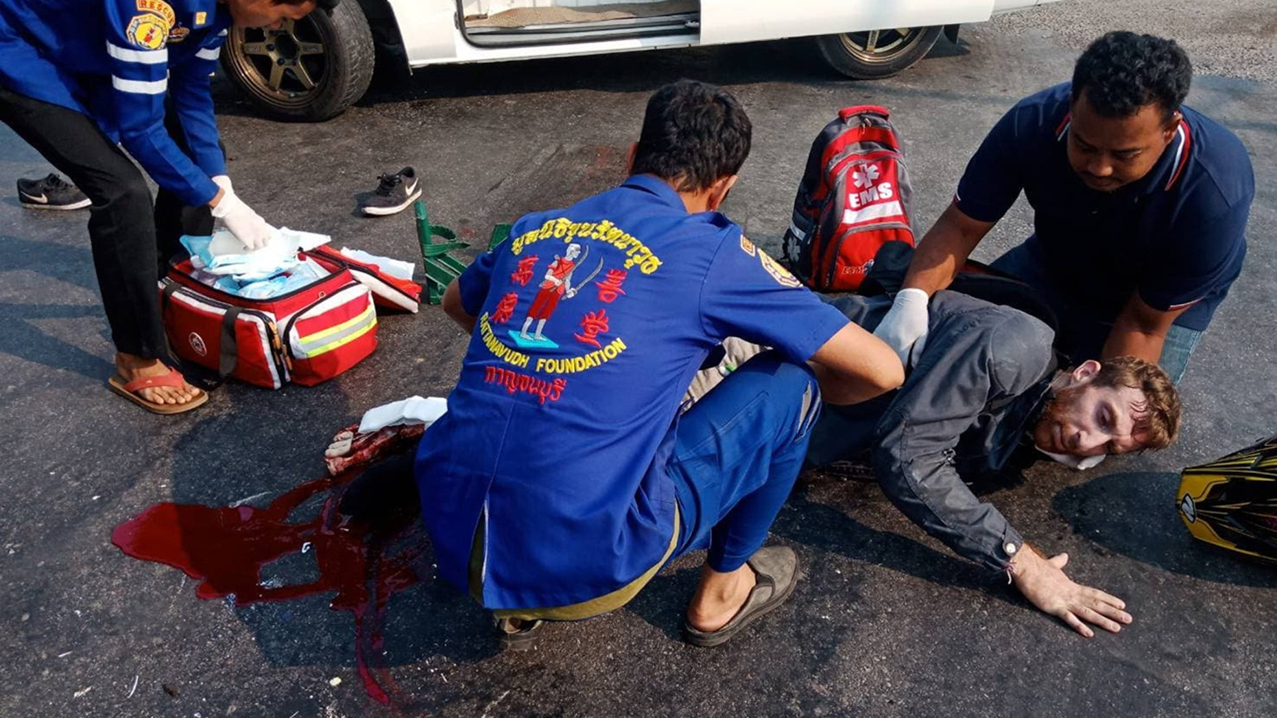 A British man had his right leg amputated and is fighting for his life after a horror motorbike crash in Thailand.