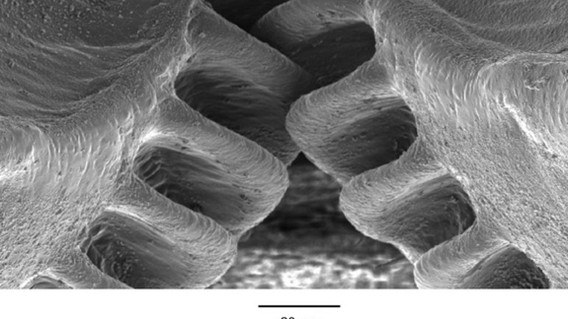 The intermeshing gears on the hind legs of a planthopper insect are shown in this scanning electron micrograph image.