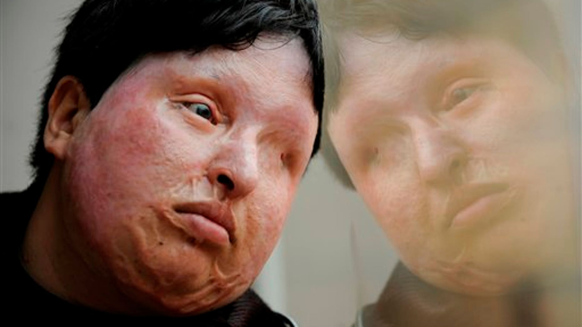 In this March 4, 2009 file photo, Ameneh Bahrami, who was blinded and disfigured by a man who poured acid on her face in 2004 for rejecting his marriage proposal, poses for a portrait at a hospital in Barcelona, Spain.