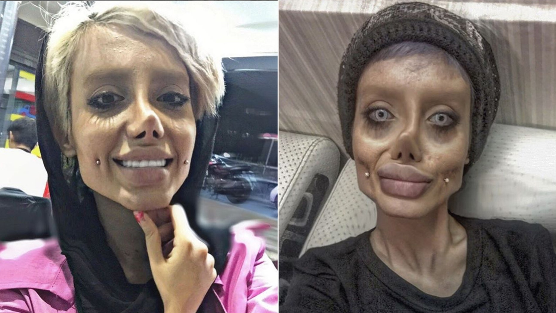 An Iranian teenager allegedly underwent 50 surgeries to look more like  Angelina Jolie.