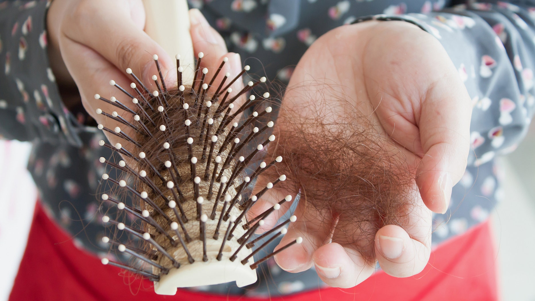 Hair loss, hand holding hairbrush with lost hair