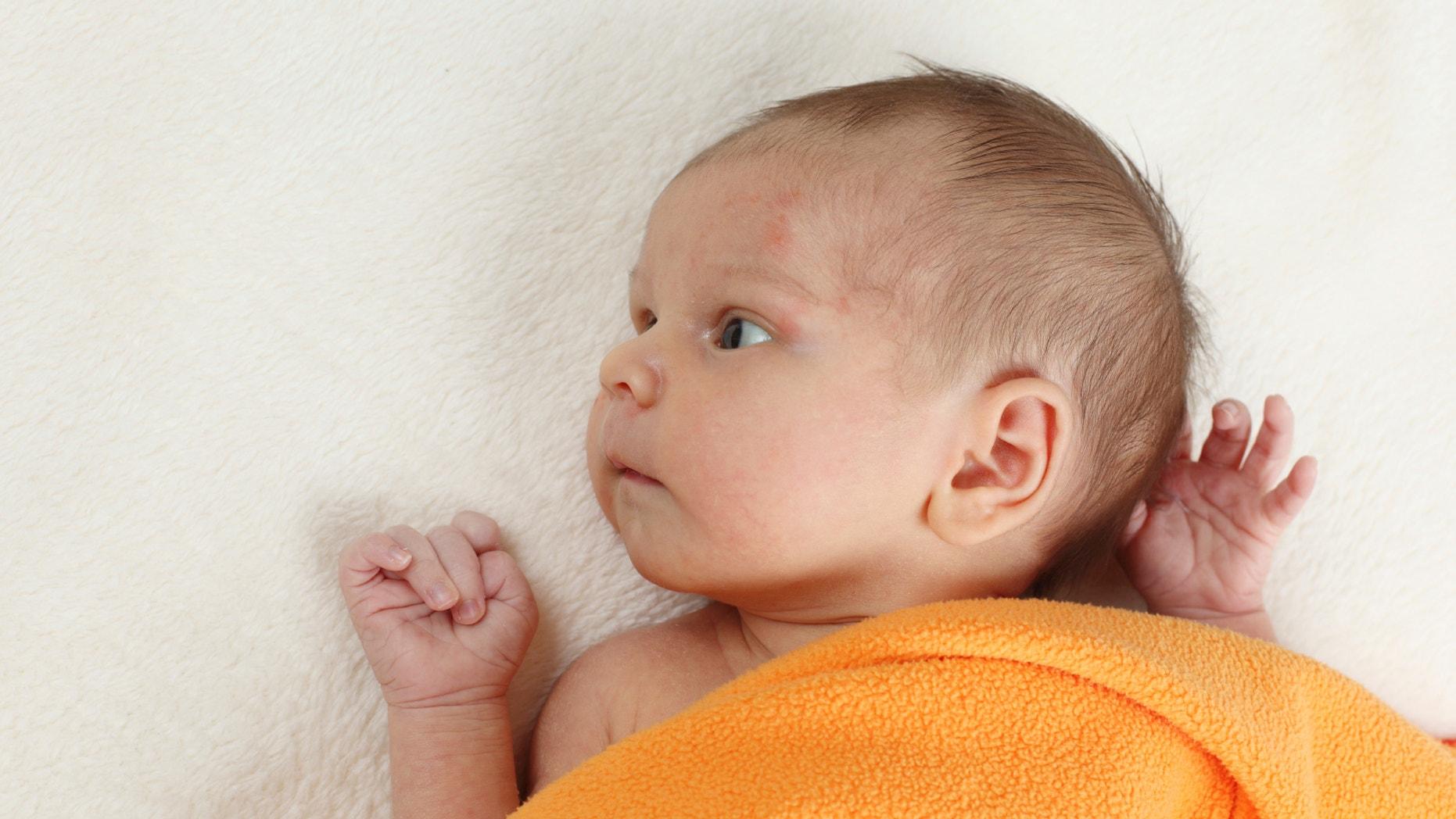 6 Effective Ways To Treat Baby Eczema Fox News