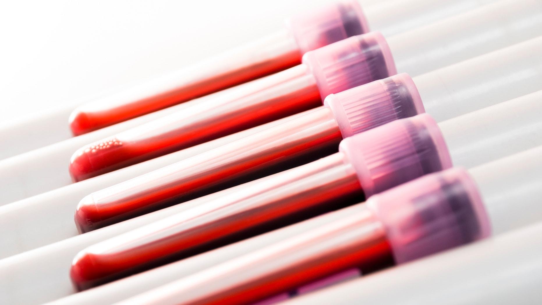 Blood samples in laboratory (coagulation test)