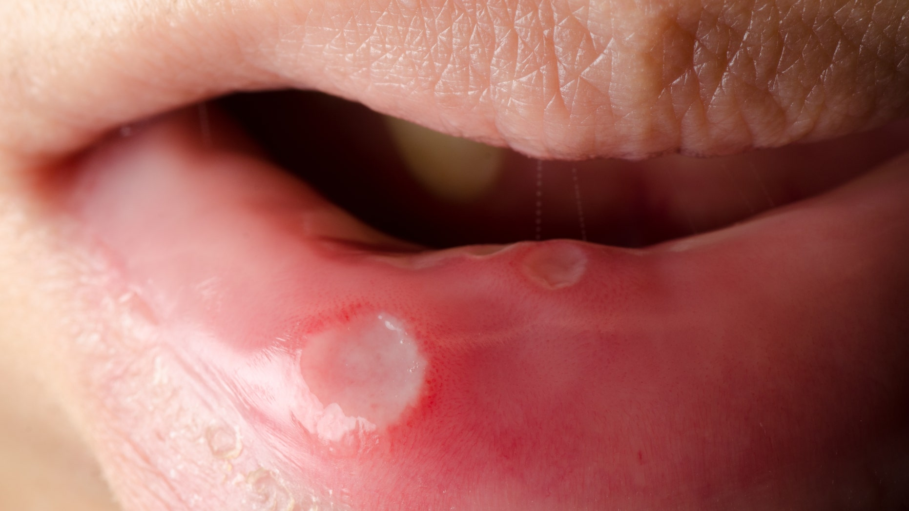 How To Get Rid Of Canker Sores And Prevent Them From