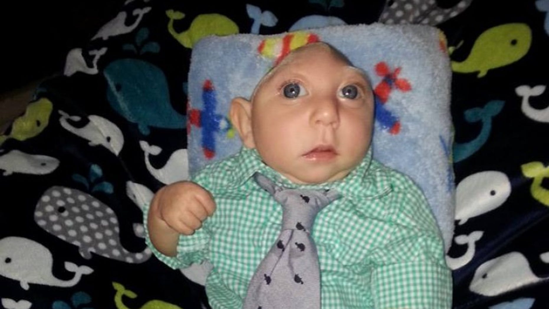Jaxon Buell was born on August 27, 2014, and was recently diagnosed with microhydranencephaly, an extreme brain malformation for which there is no known cure.
