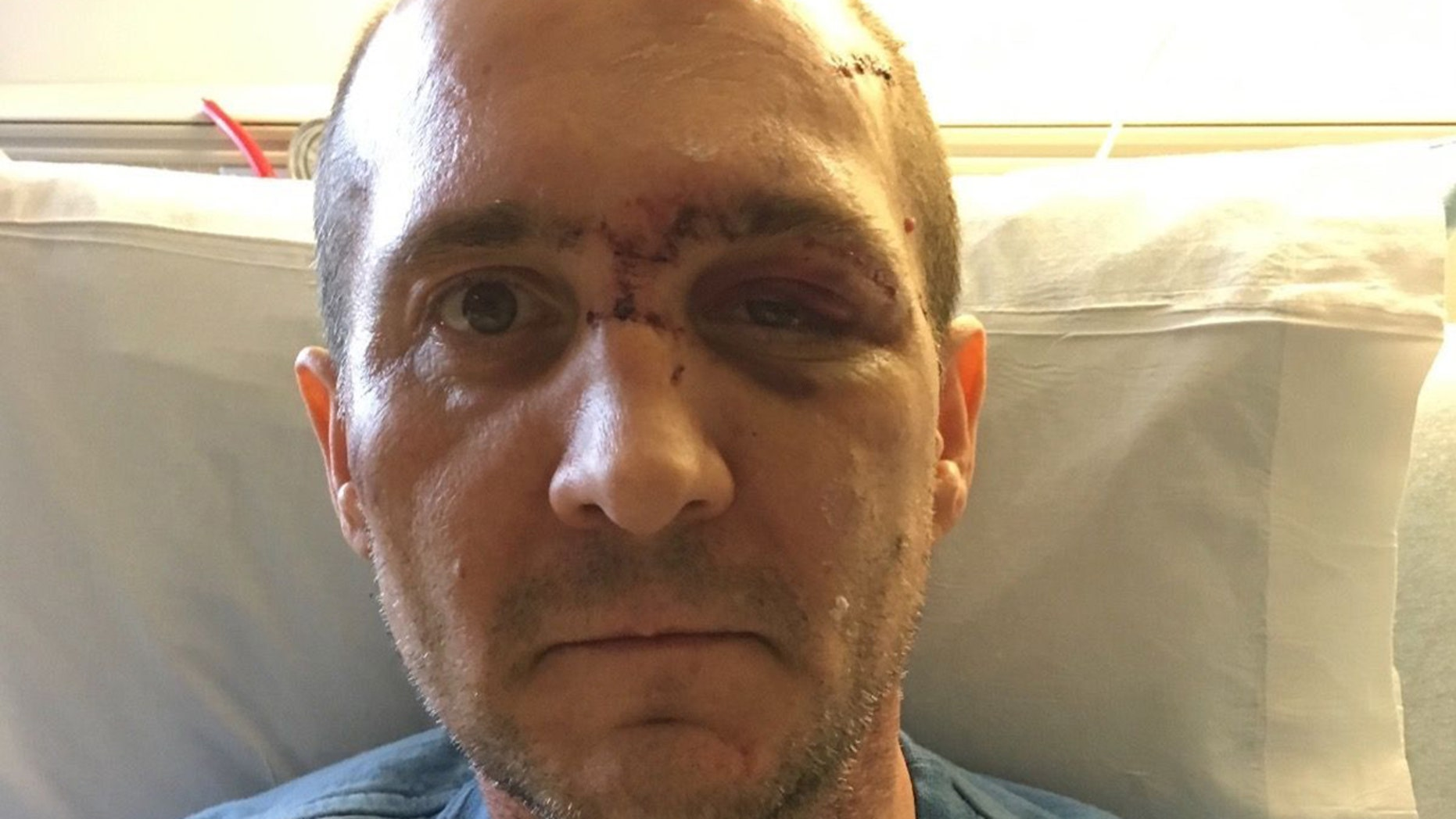Joshua Morrison told Fox 12 intruders ambushed him in his home.